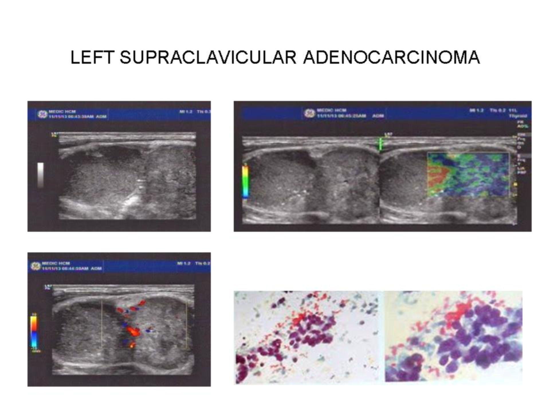 Supraclavicular adenocarcinoma
