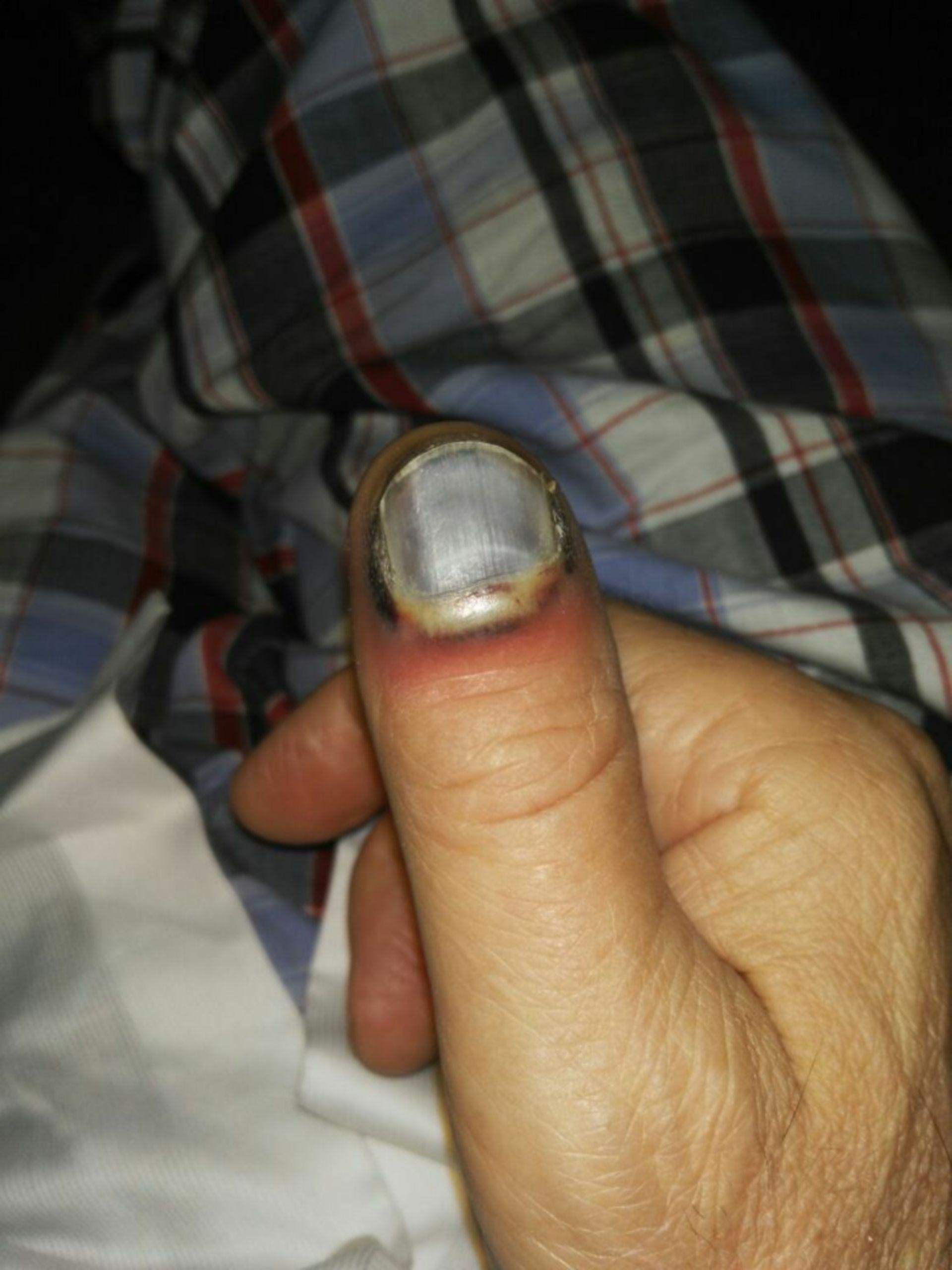 Blau angelaufener Fingernagel