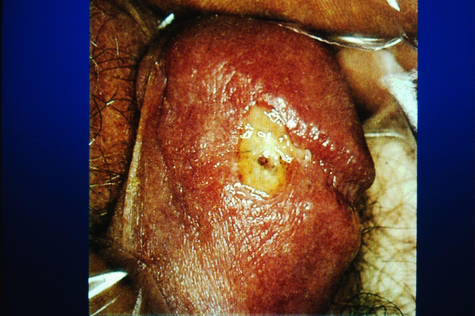 Afección primaria de la sífilis