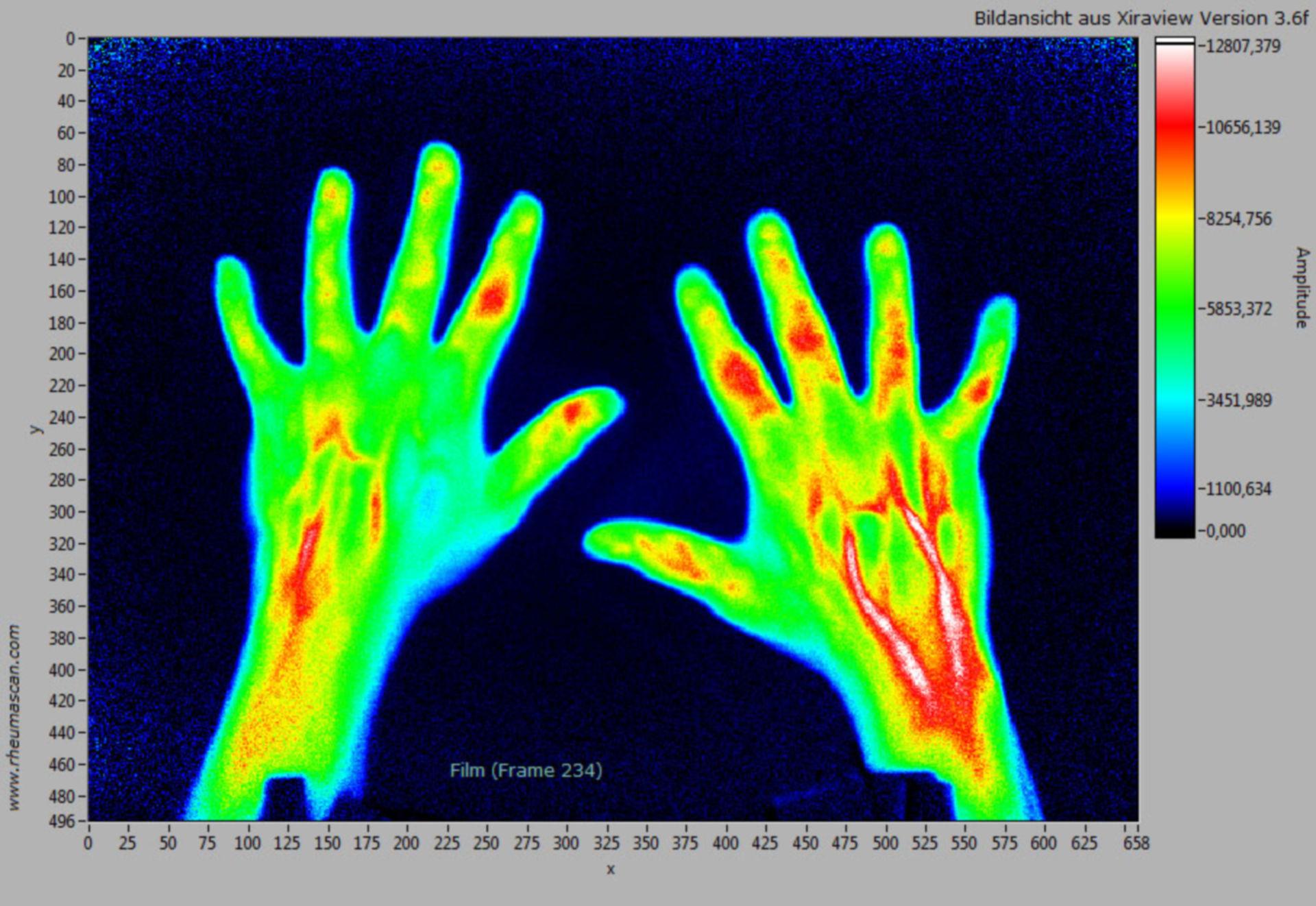 Rheumascan-Xiralite-Rheumatoide Arthritis