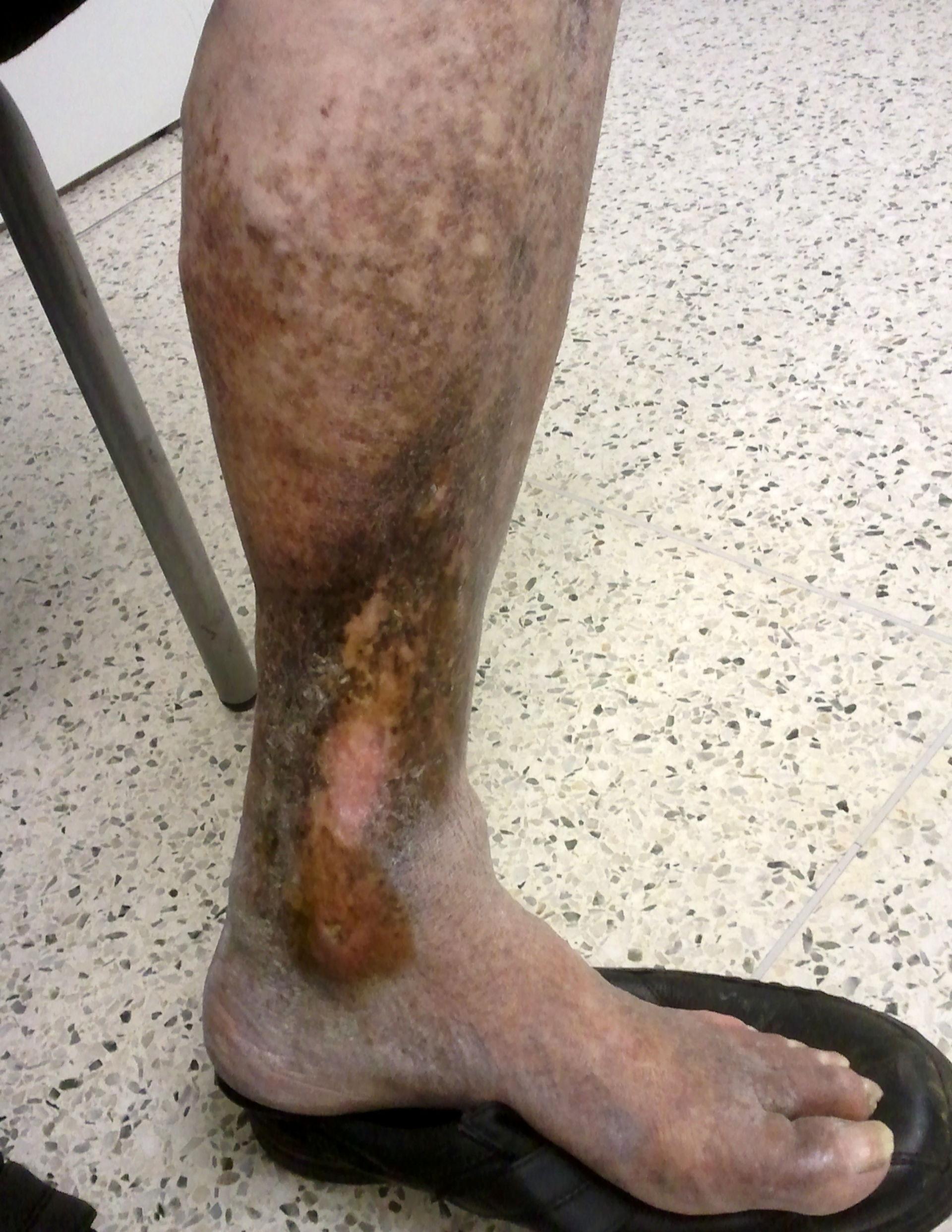 Ulcera crural en paciente con varicosis
