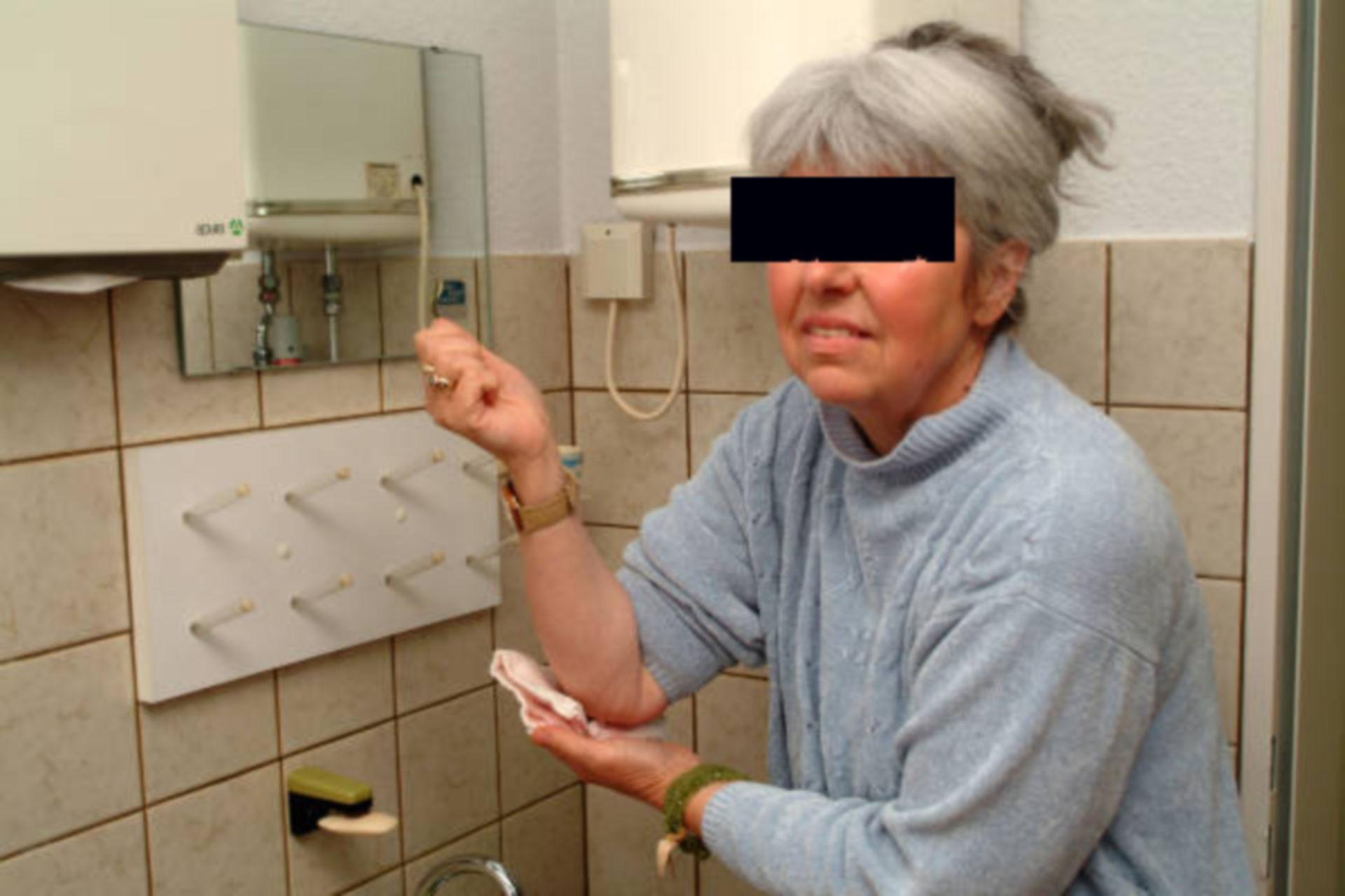 Neurodermitis-Patientin