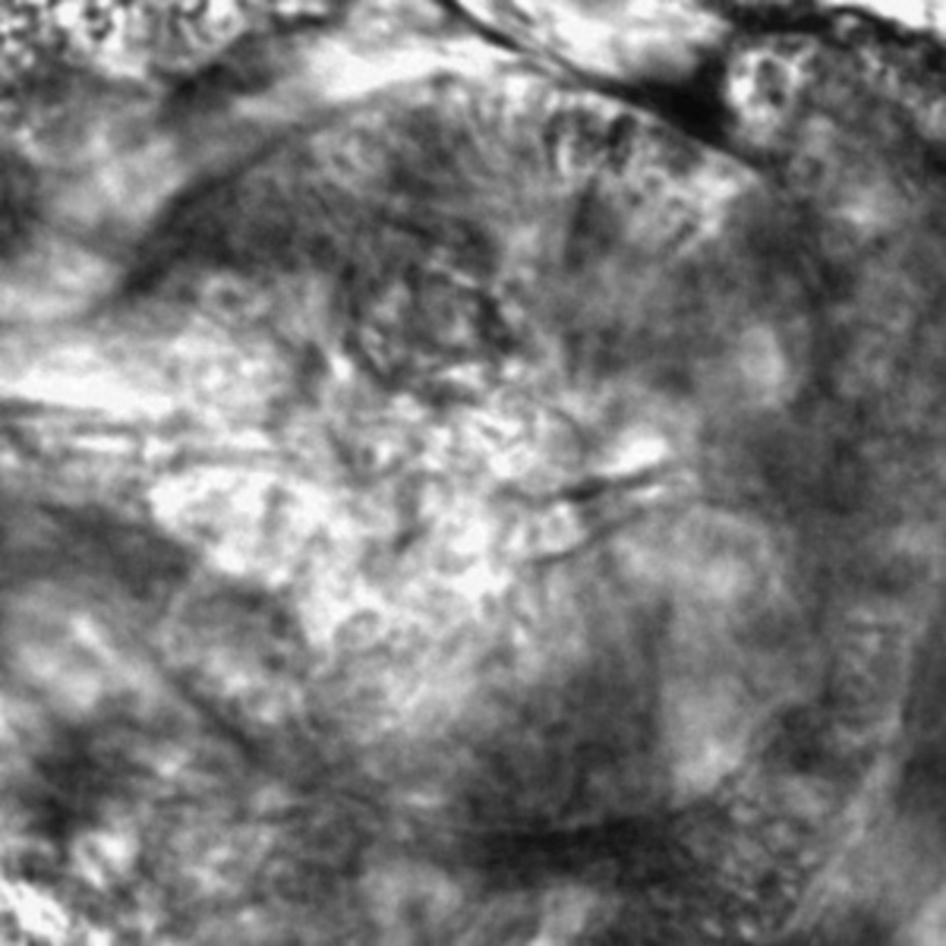 Caenorhabditis elegans - CIL:2573