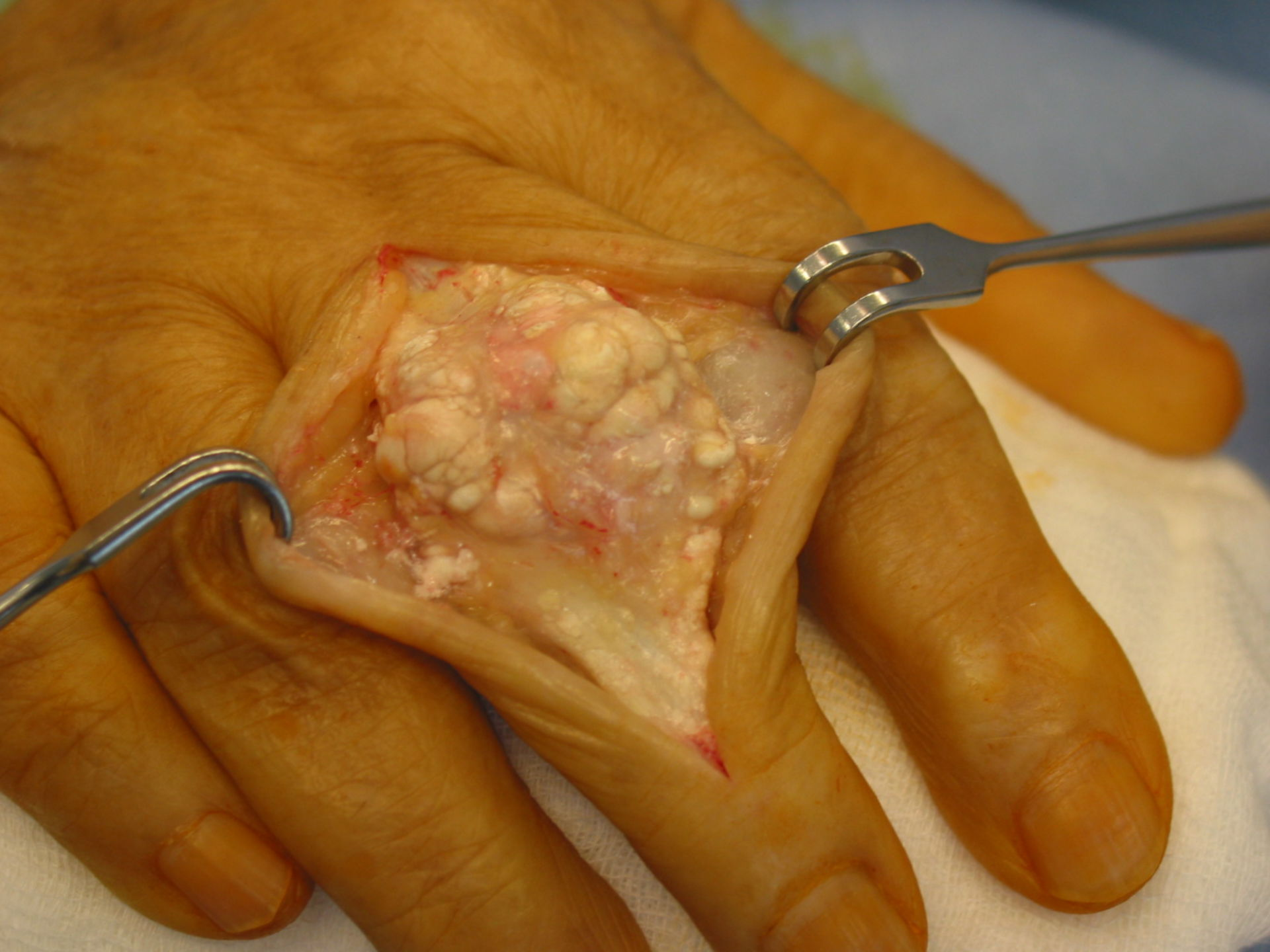 Arthritis urika (gout) in the hand (opened up)
