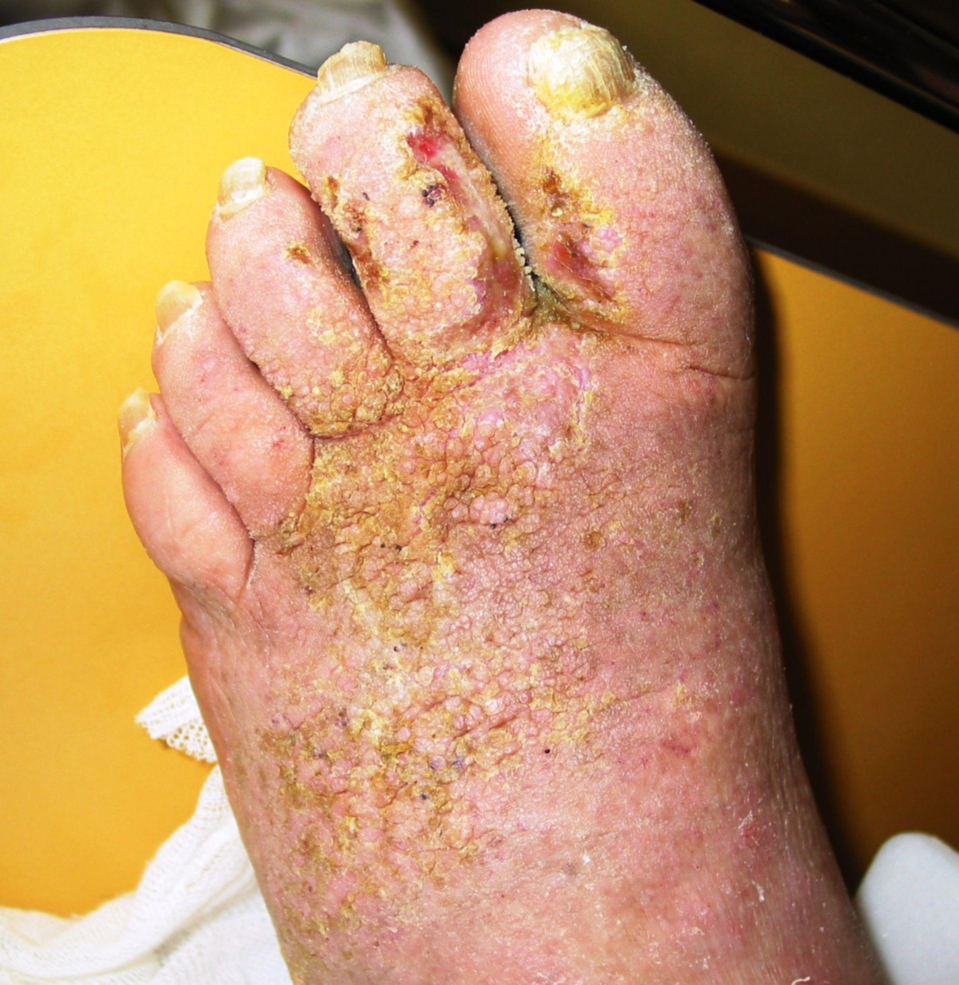 Hyperkeratose-Pilzbefall- Superinfektion