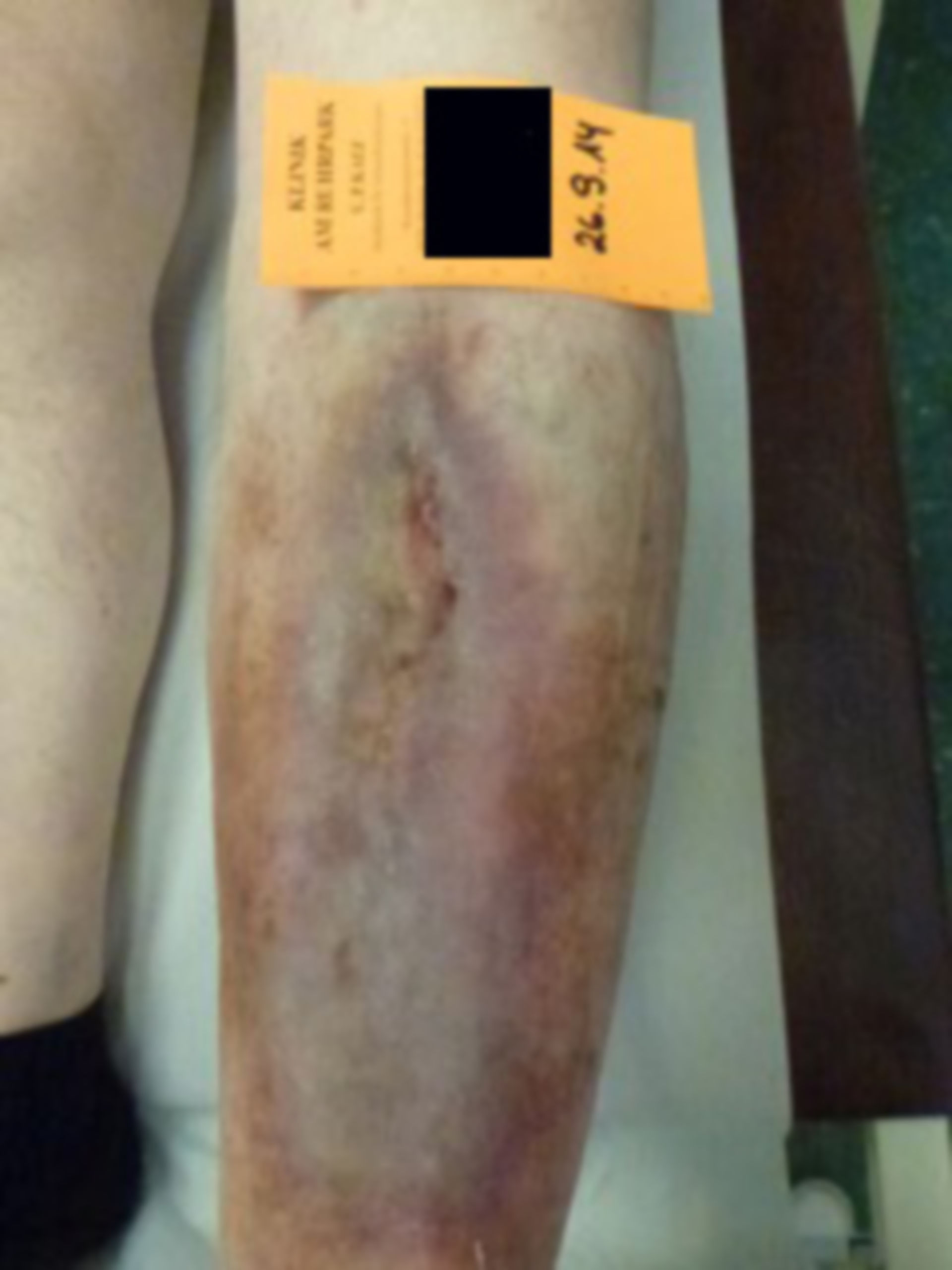 Úlcera de la pierna - abierta por 20 años: día 24 (12)