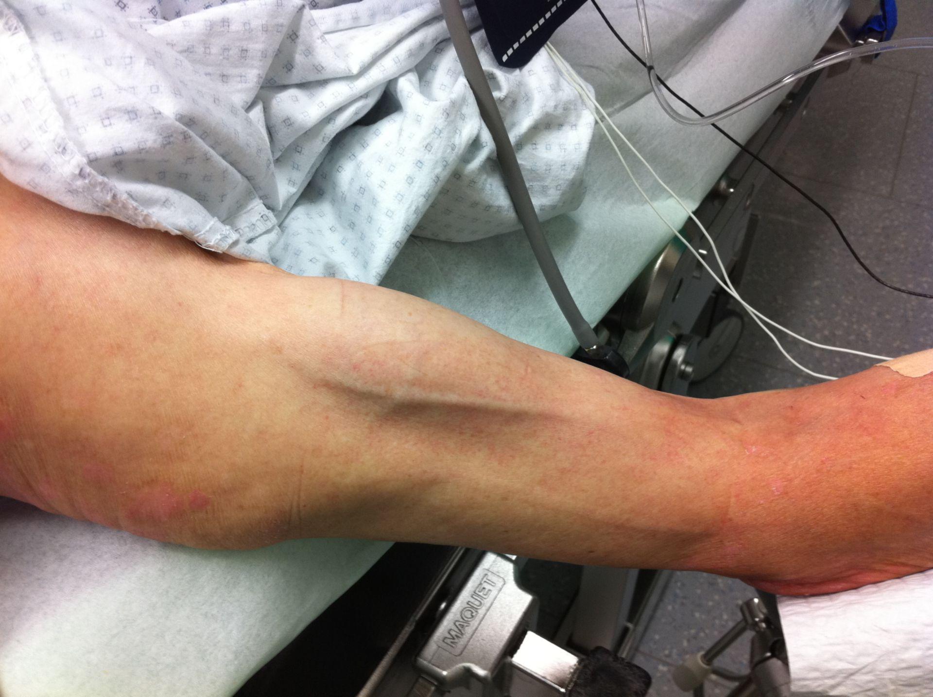 Rottura tendine muscolo bicipite