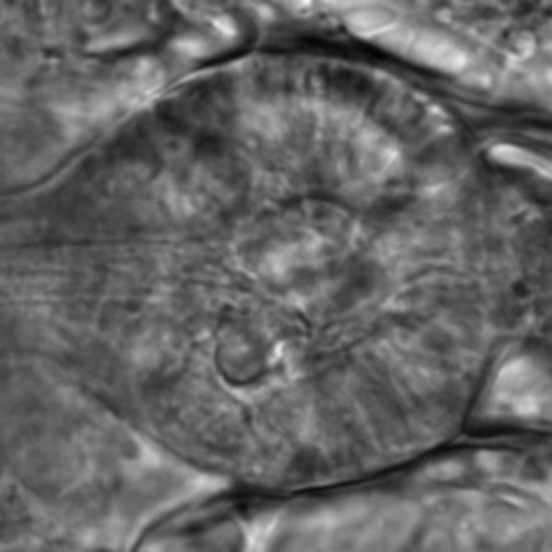 Caenorhabditis elegans - CIL:2578