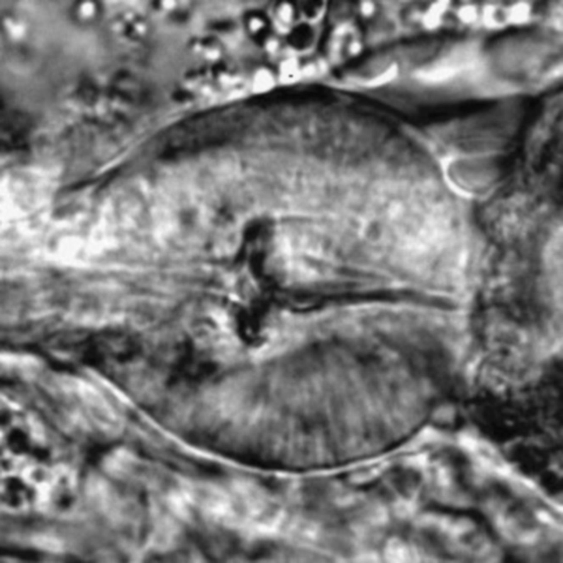 Caenorhabditis elegans - CIL:1704