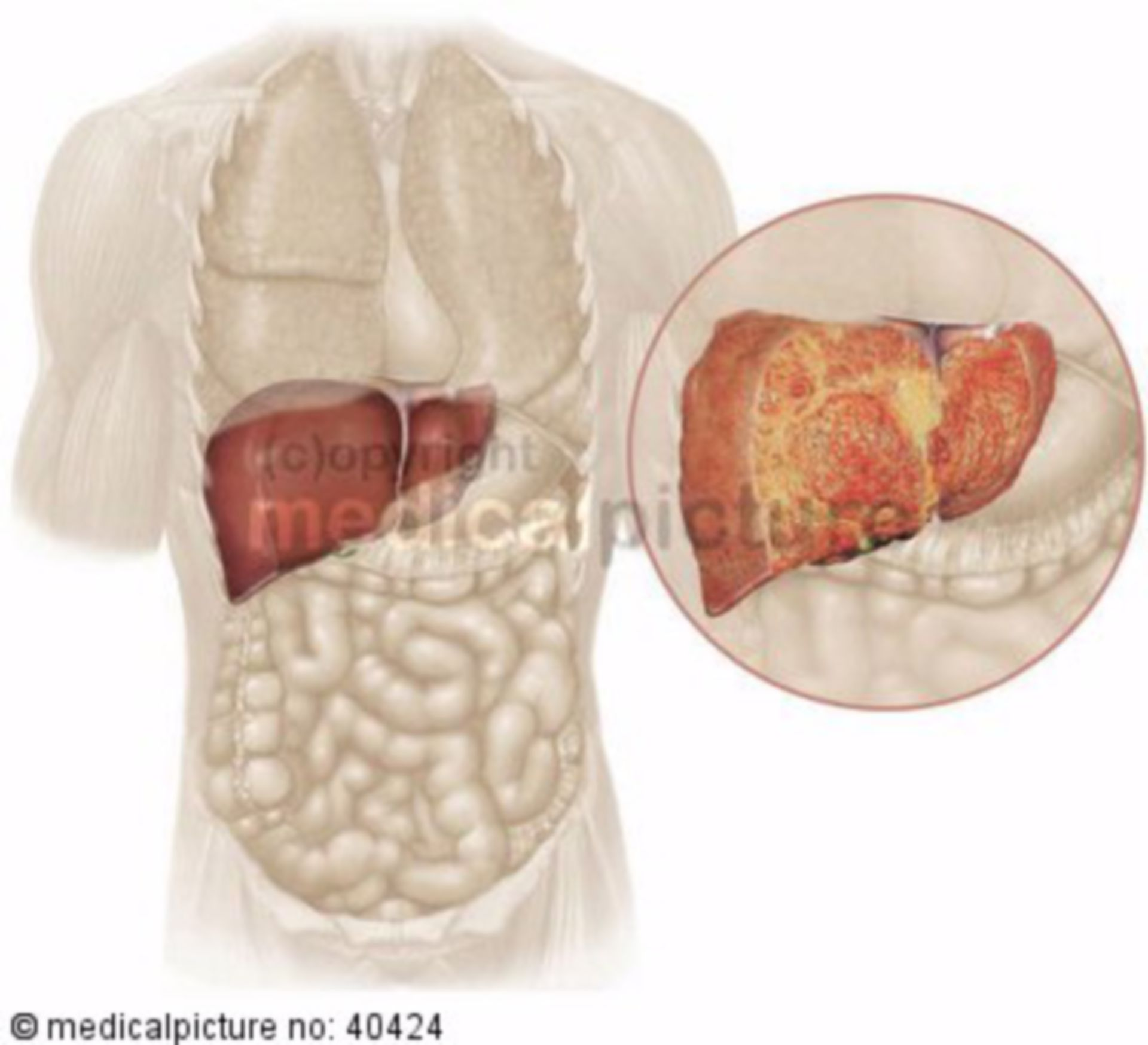 Liver in human body with inflammatory and cirrhotic processes