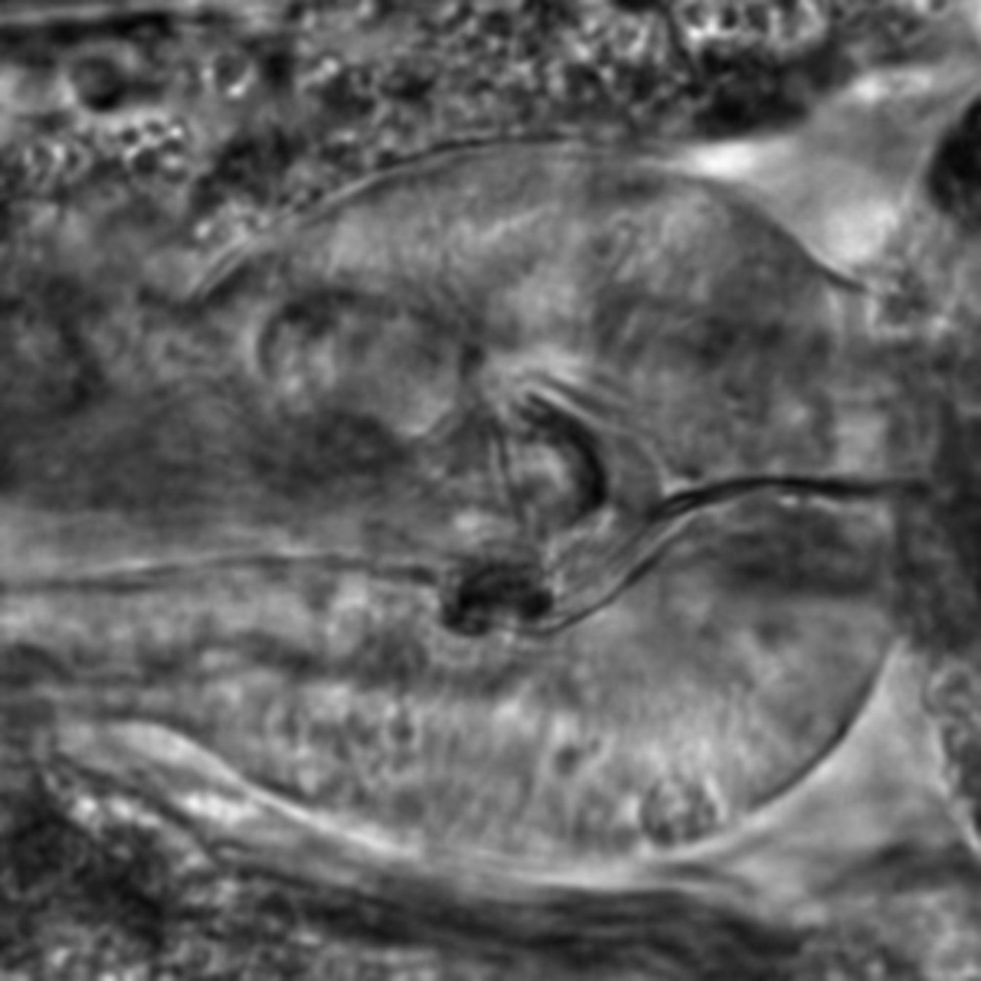 Caenorhabditis elegans - CIL:2301