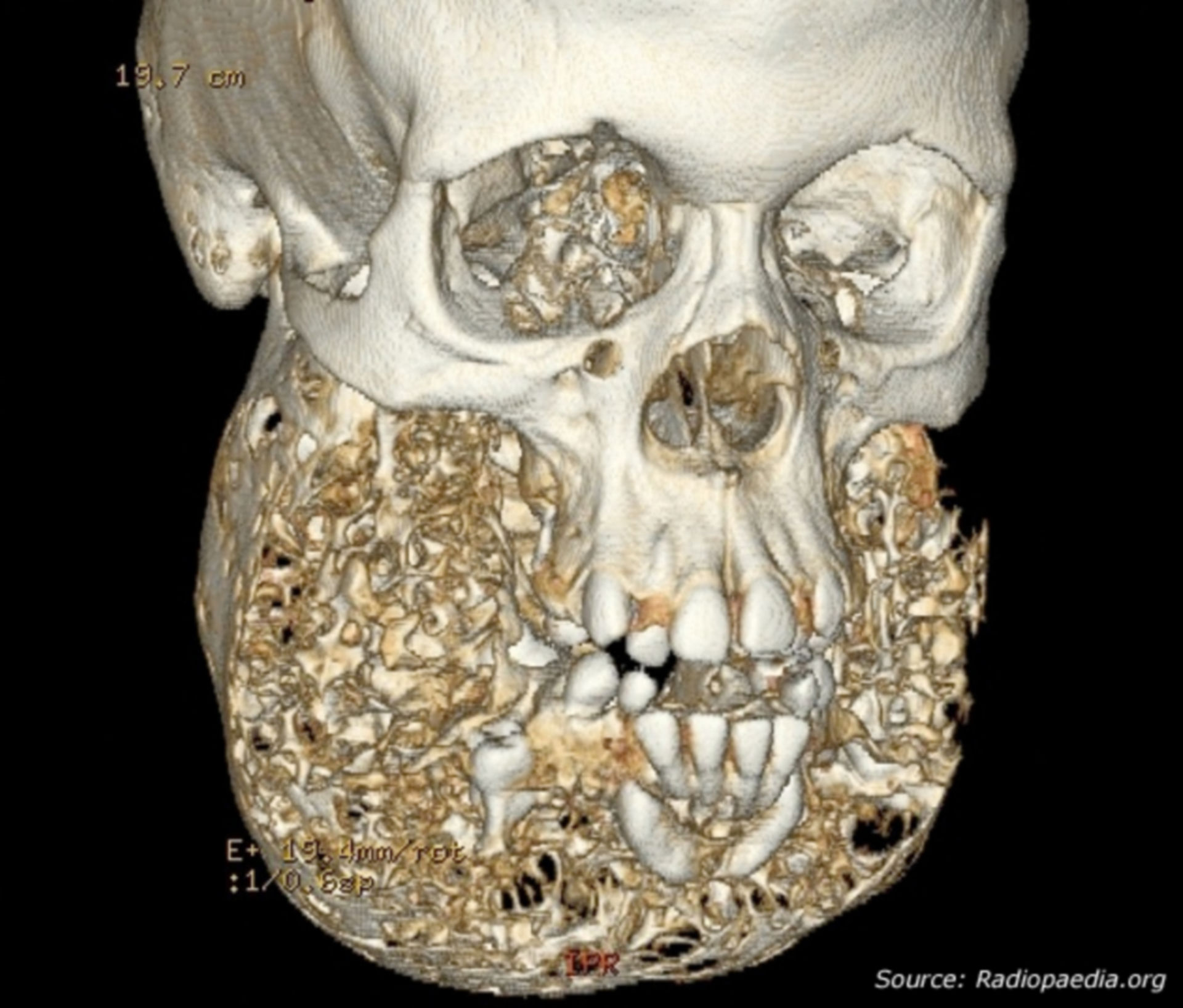 3D CT image of the skull
