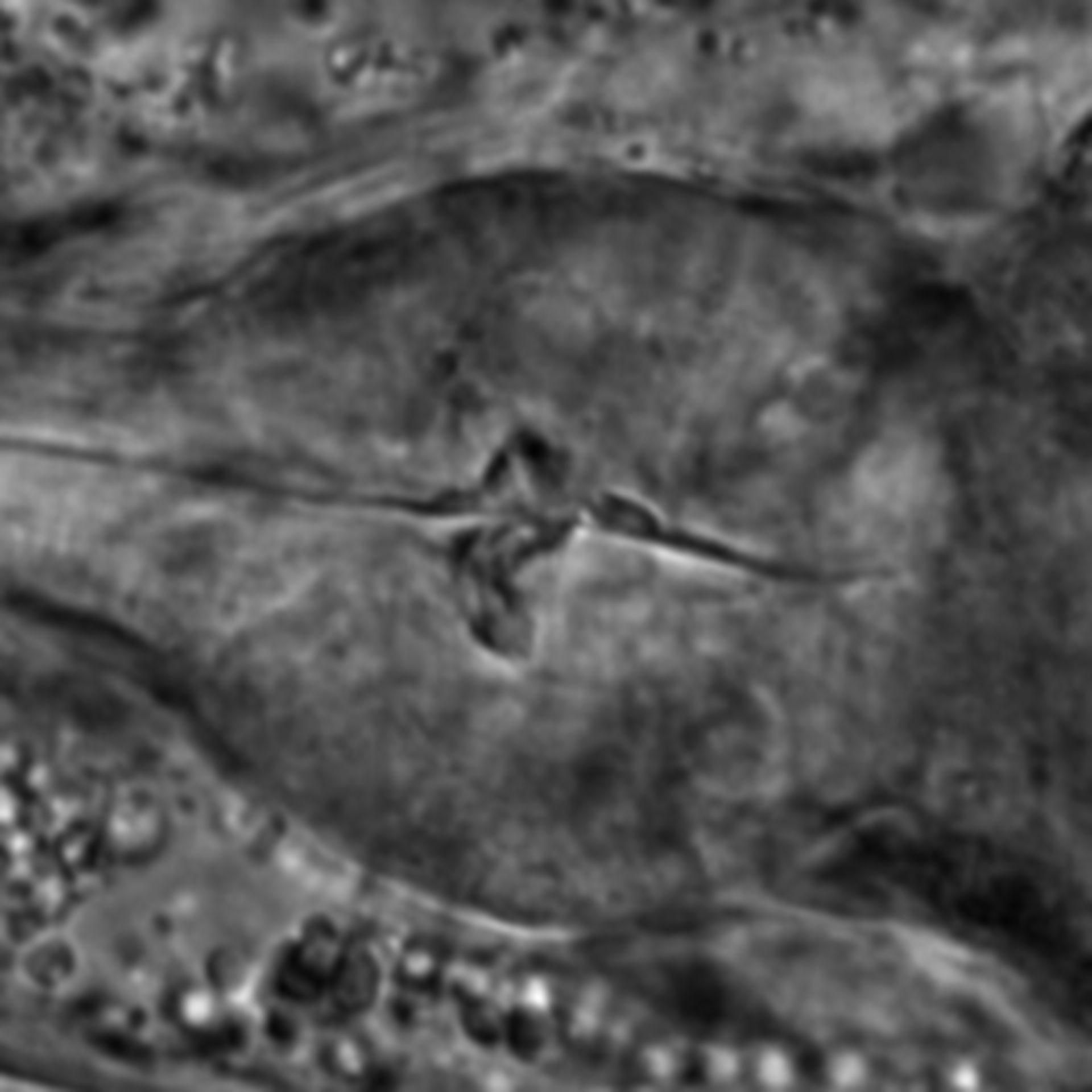 Caenorhabditis elegans - CIL:1765