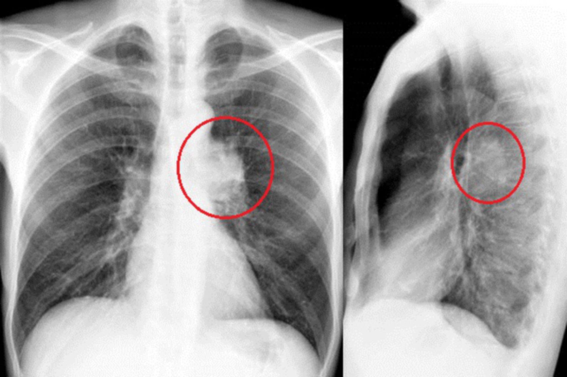 hil_rf: Röntgen des Thorax in 2 Ebenen