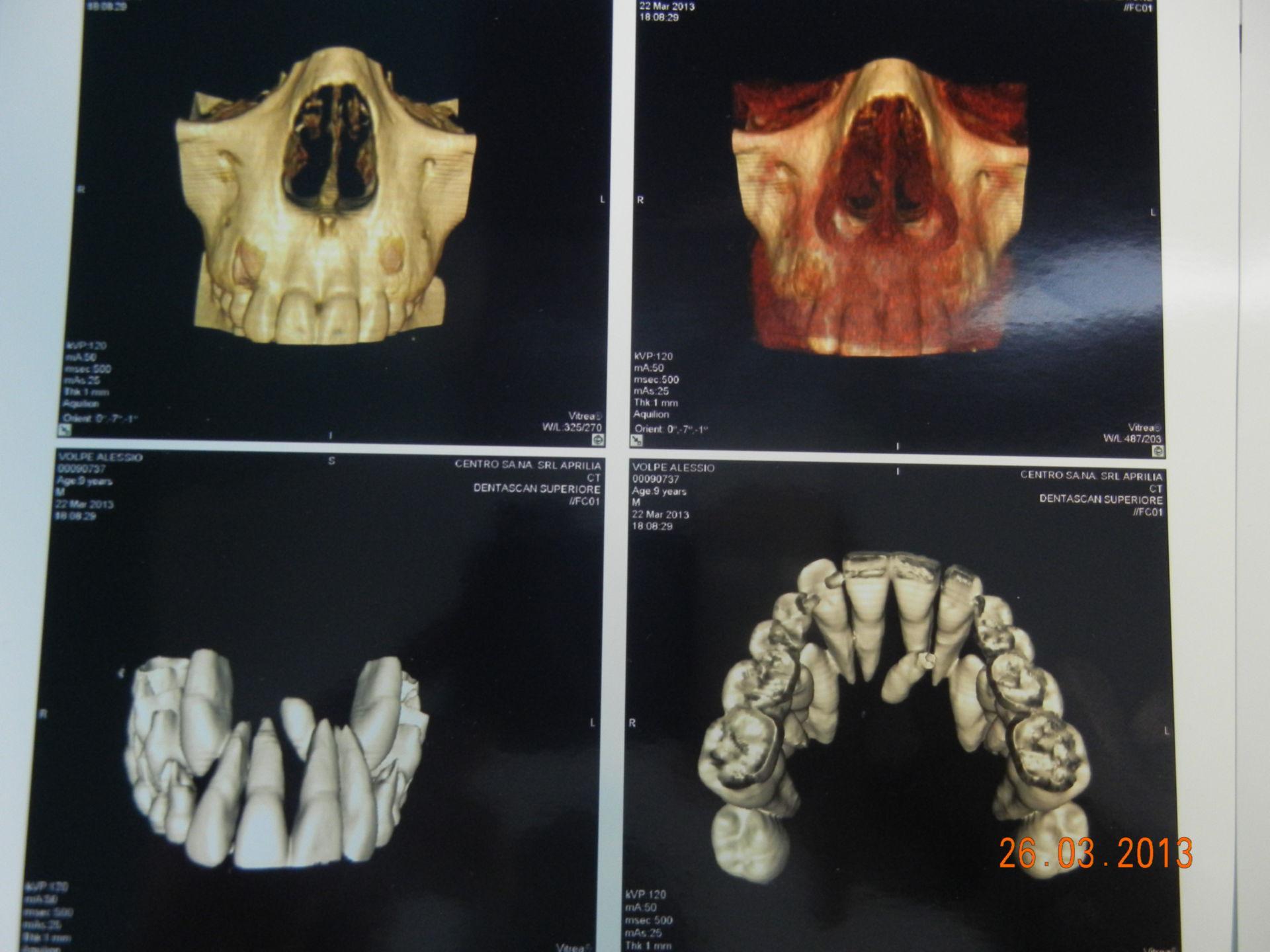 CT 3D der überzäligen Zähne
