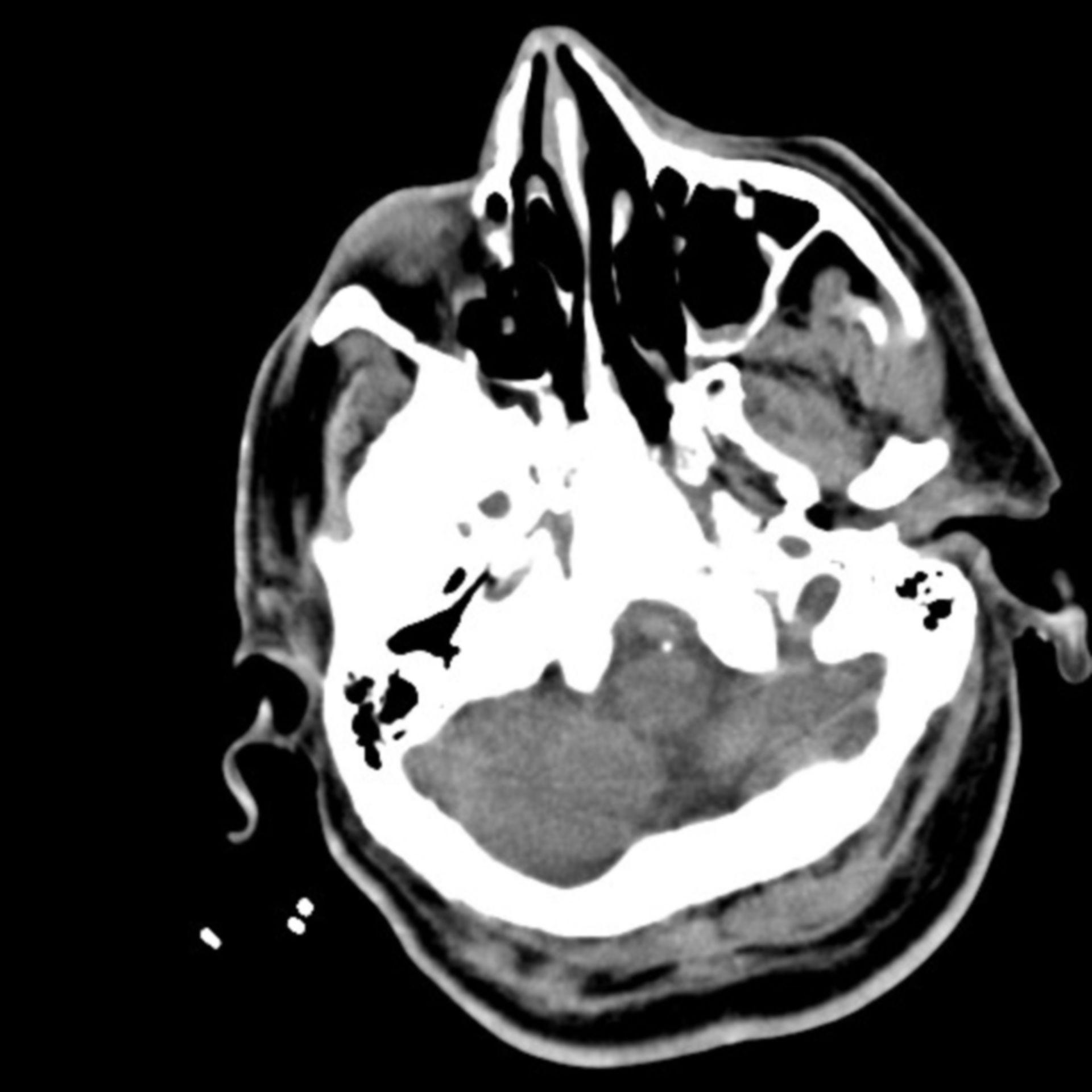 Gehirnblutung+Pneumonie 8