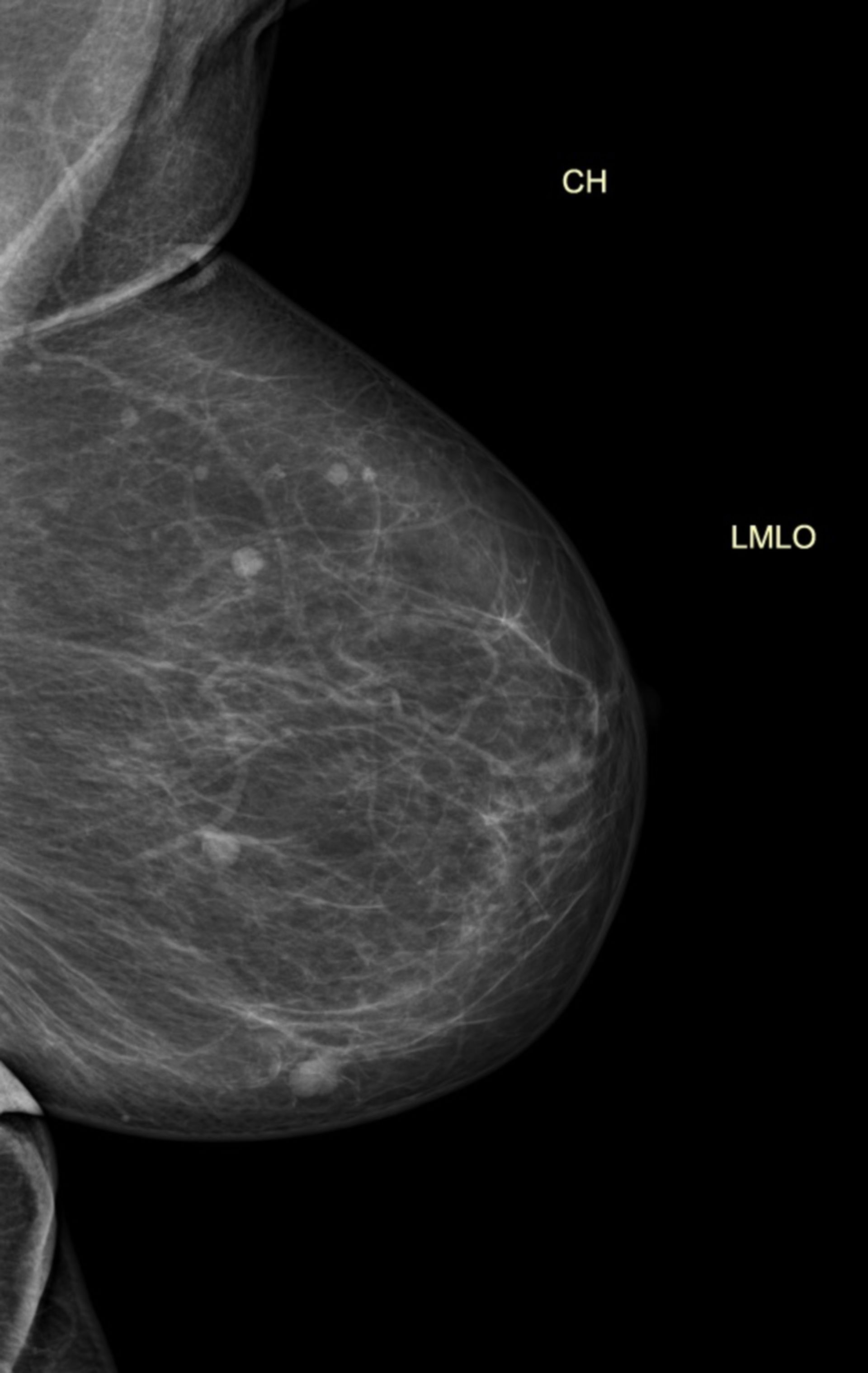 tag2_mammo_li: Mammographiebefund einer linken Brust
