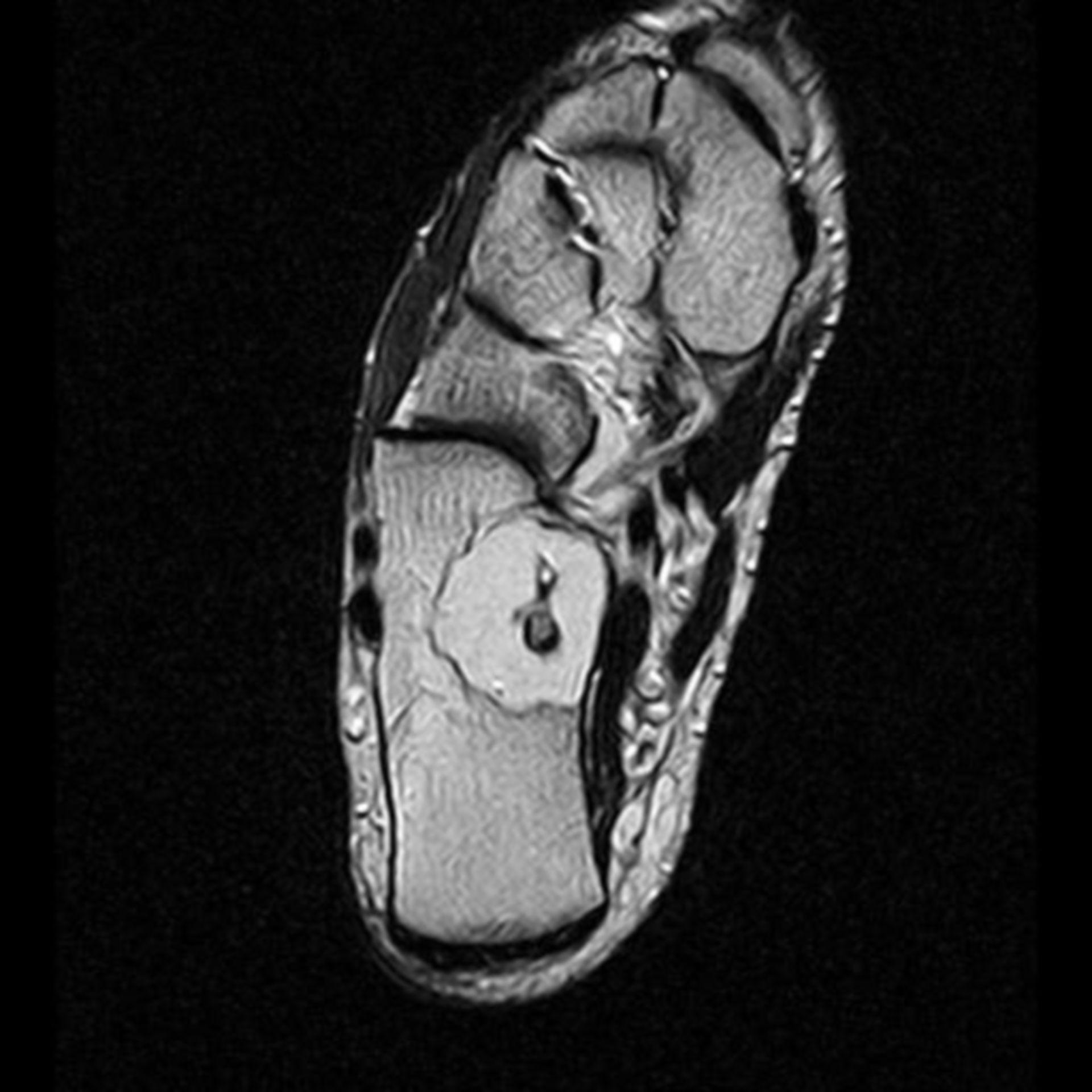 IRM del calcaneo T2 trans S6 I9