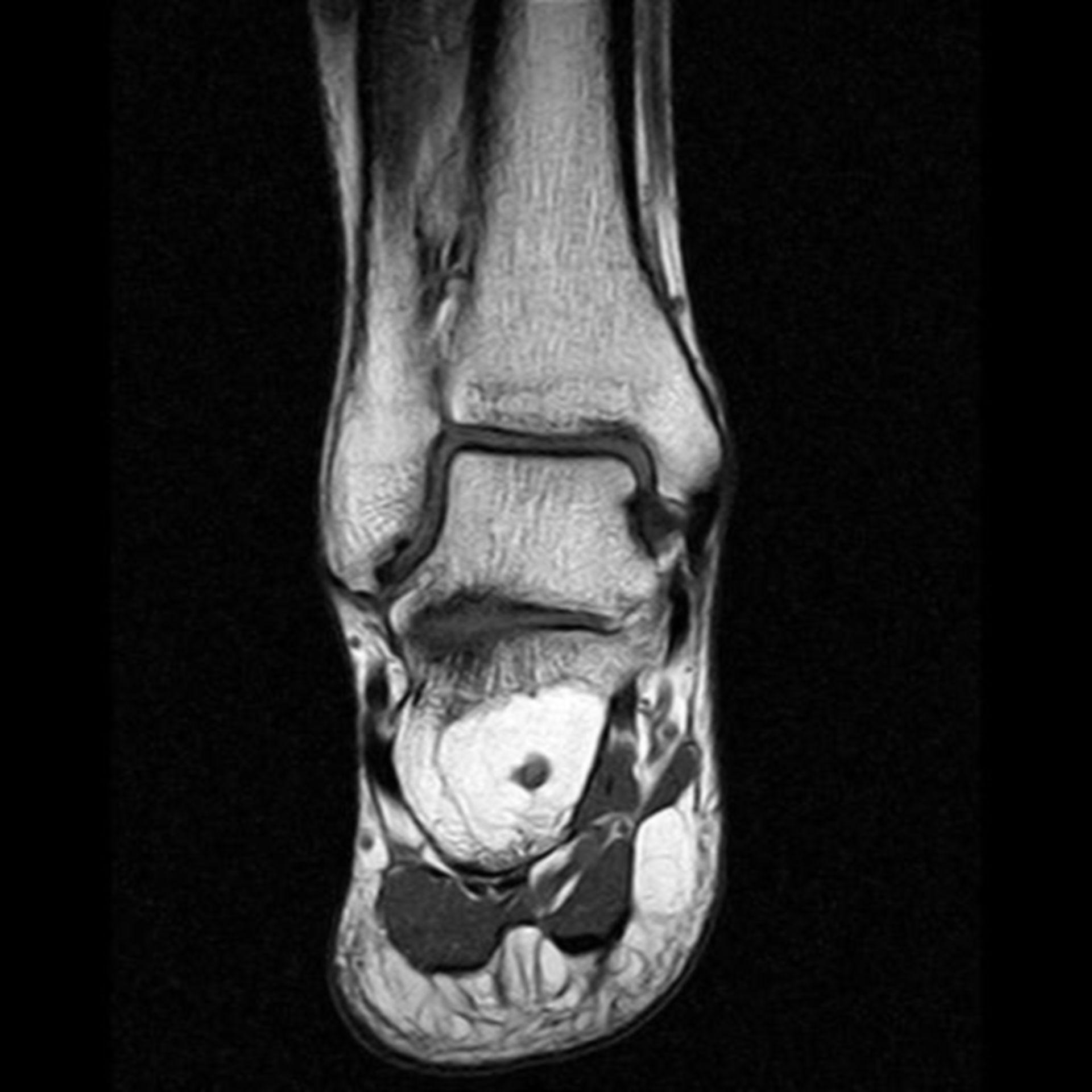 IRM del calcaneo T1 cor S5 I9