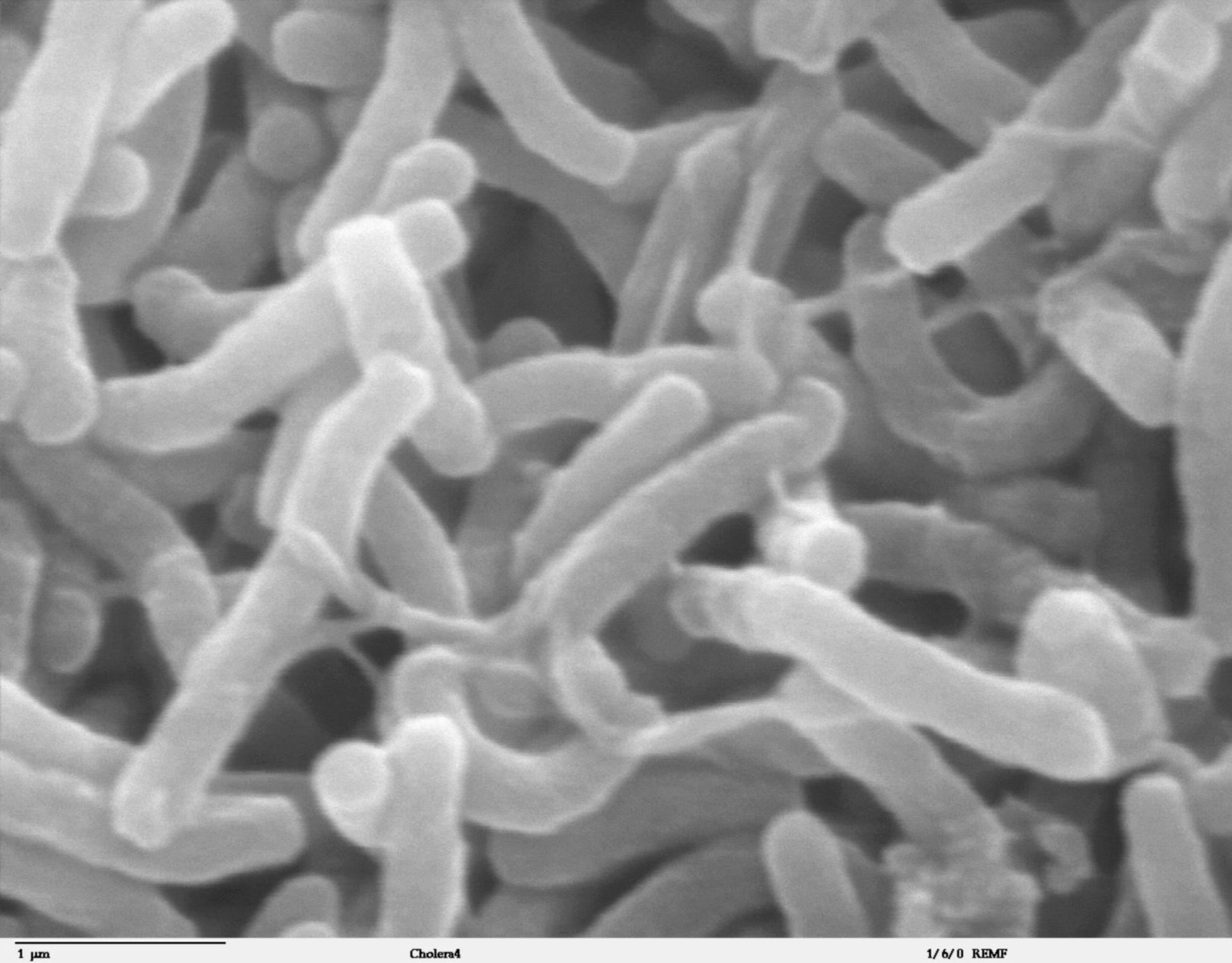 Vibrio cholerae (superficie cellulare) - CIL:40399