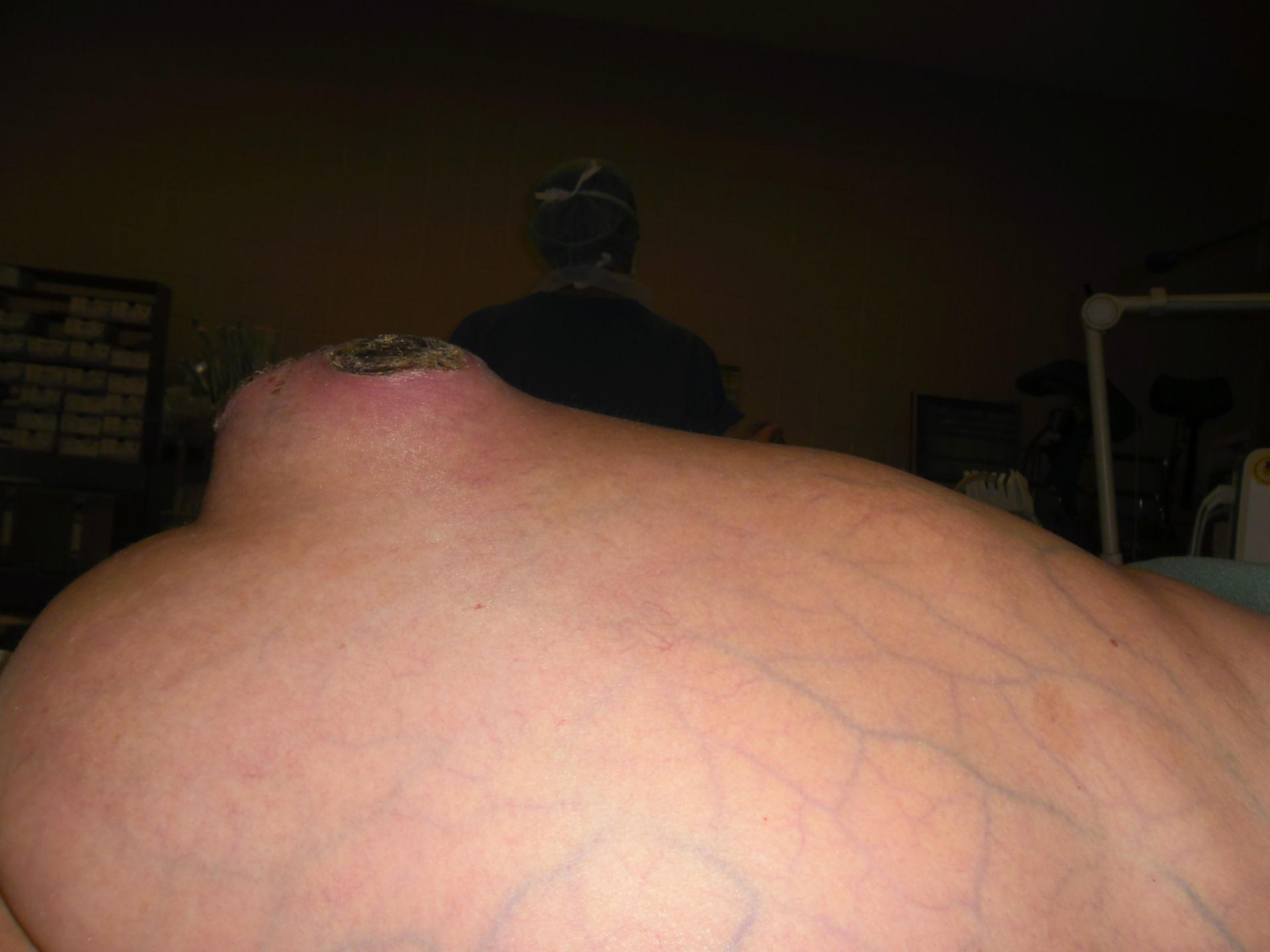 Hernia umbilical y necrosis de la piel