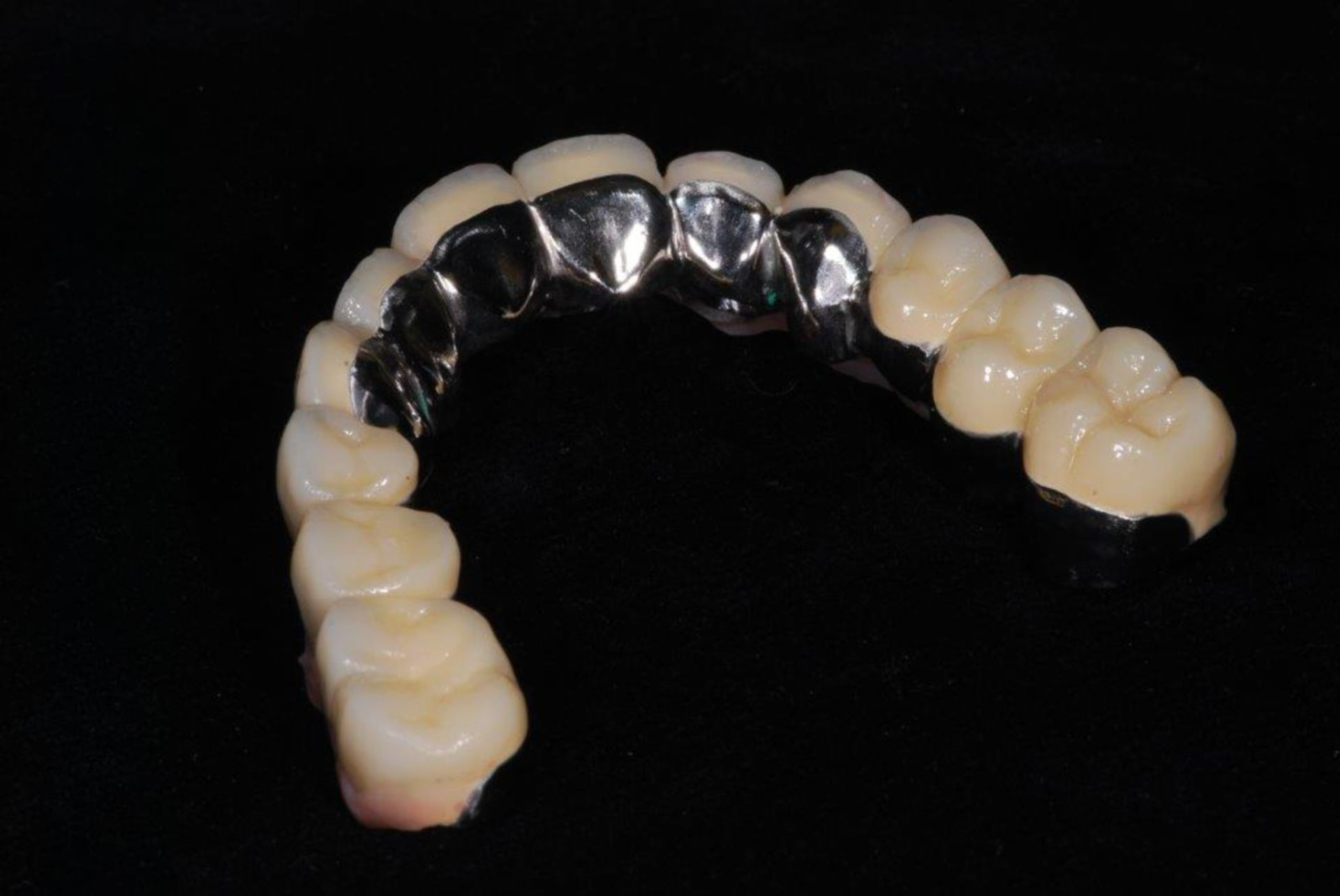 Kombiniert festsitzend - herausnehmbarer Zahnersatz