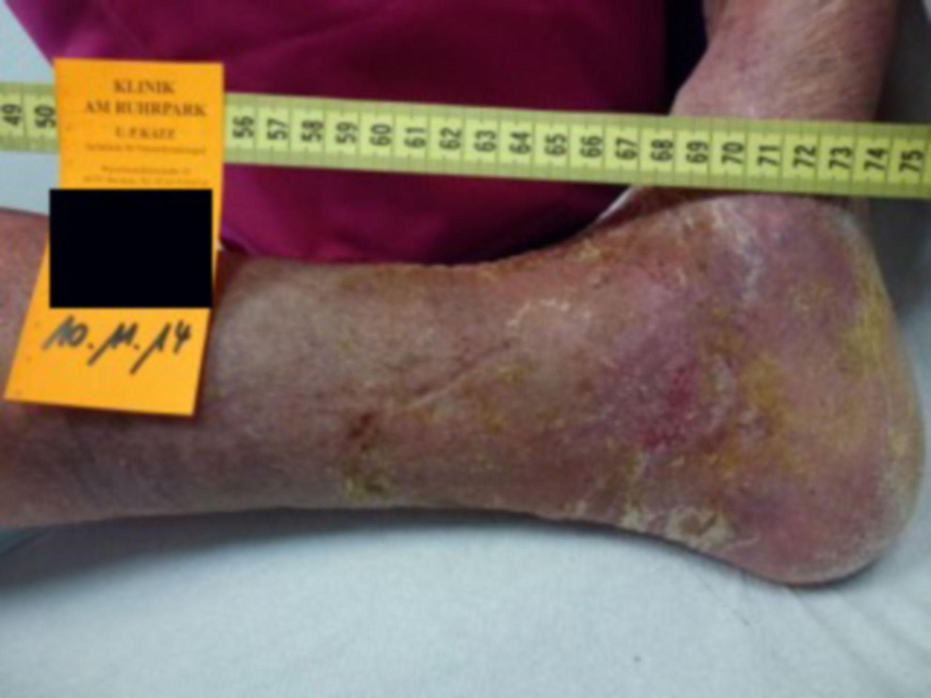 Úlcera de la pierna - Cerrada dentro de 72 horas (12)