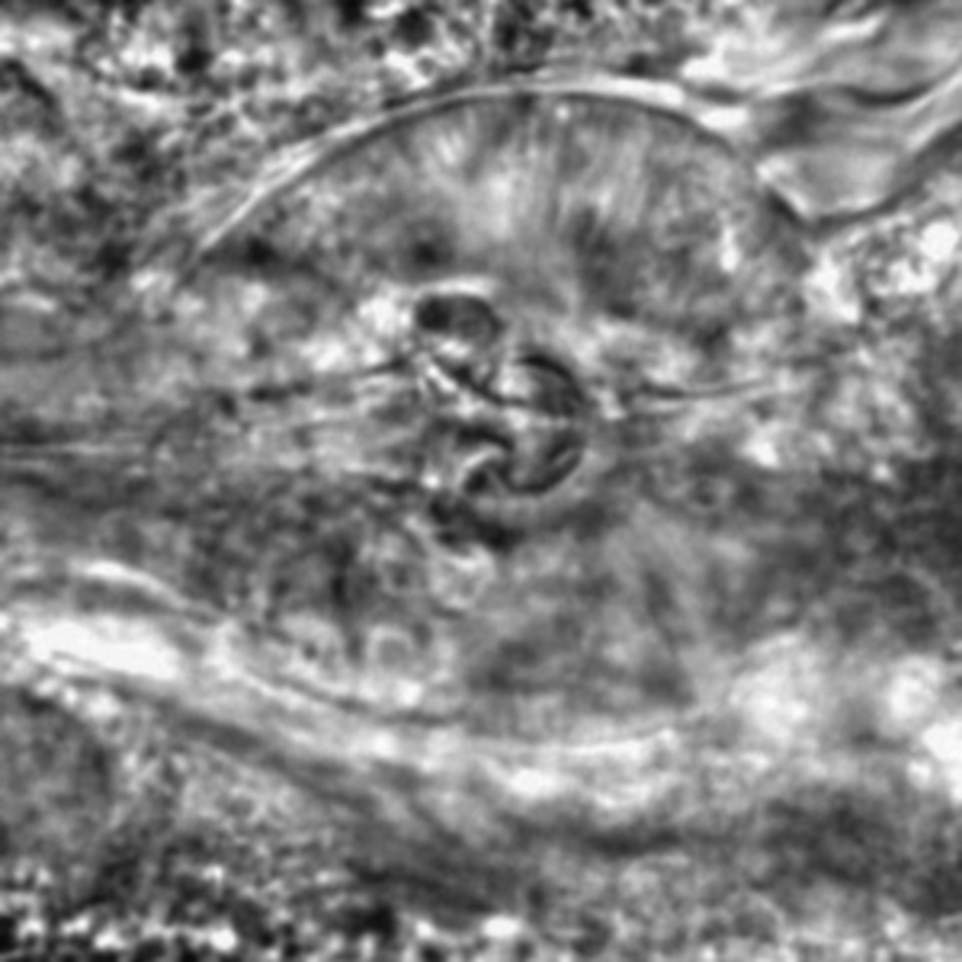 Caenorhabditis elegans - CIL:2125