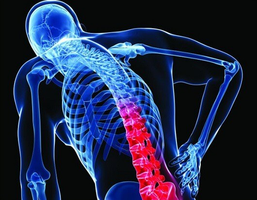 6_non-medical_causes_of_back_pain_that_you_shouldn_t_neglect_original.jpg