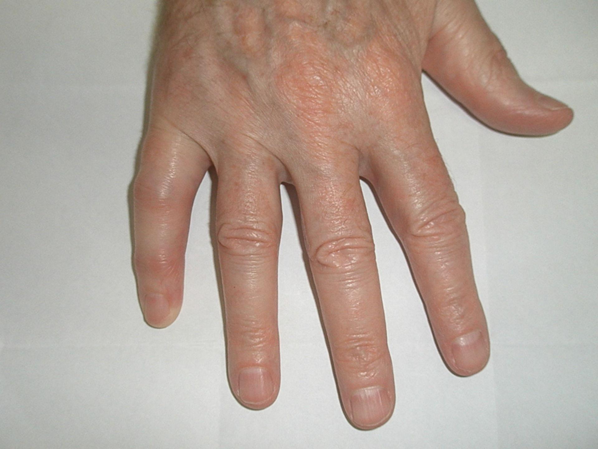 Daktylitis bei einem Patienten mit Psoriasis-Arthritis