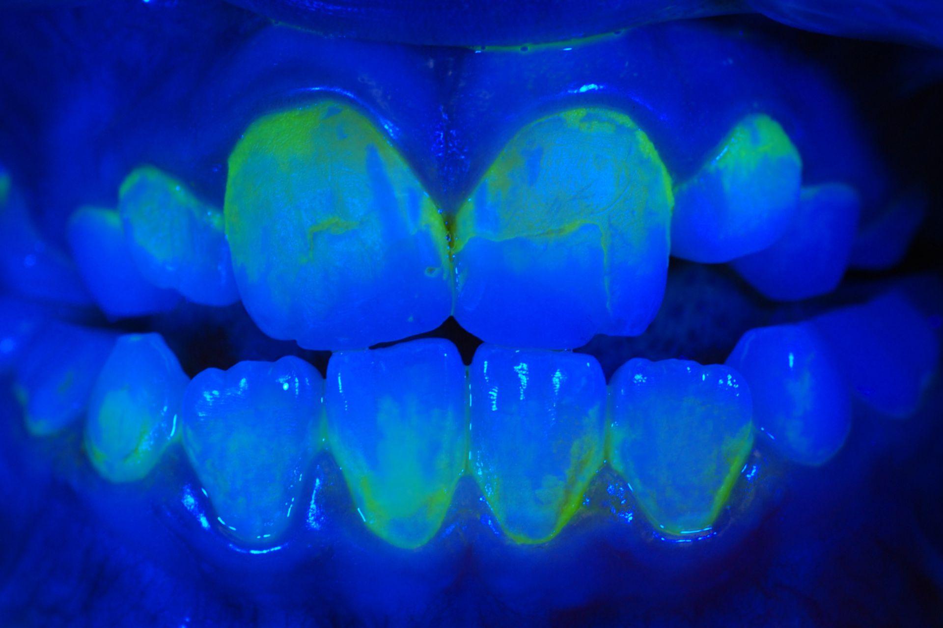 Plaque Disclosure UV Light 2500x1666