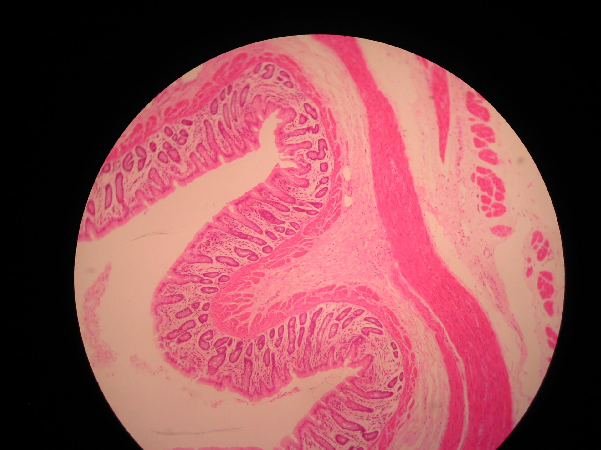 Veterinary medicine: Colon of a sheep- Layering