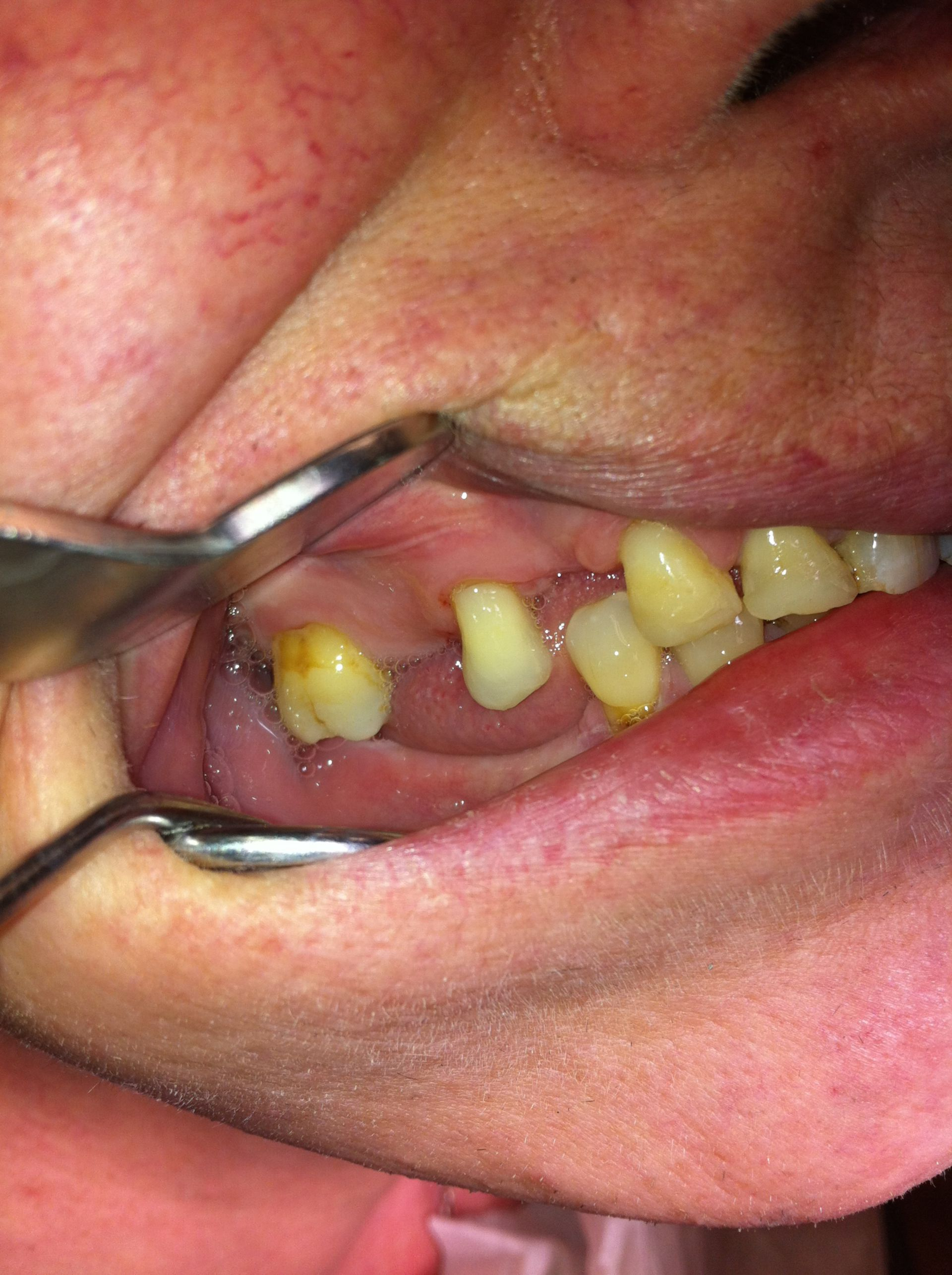 Elongation der Antagonisten durch Zahnverlust