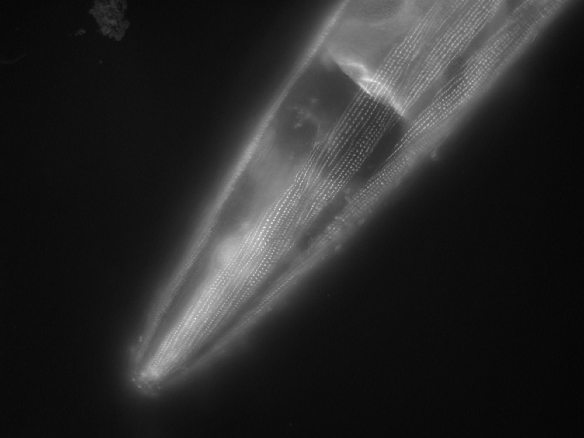 Caenorhabditis elegans (filamento di actina) - CIL:1137