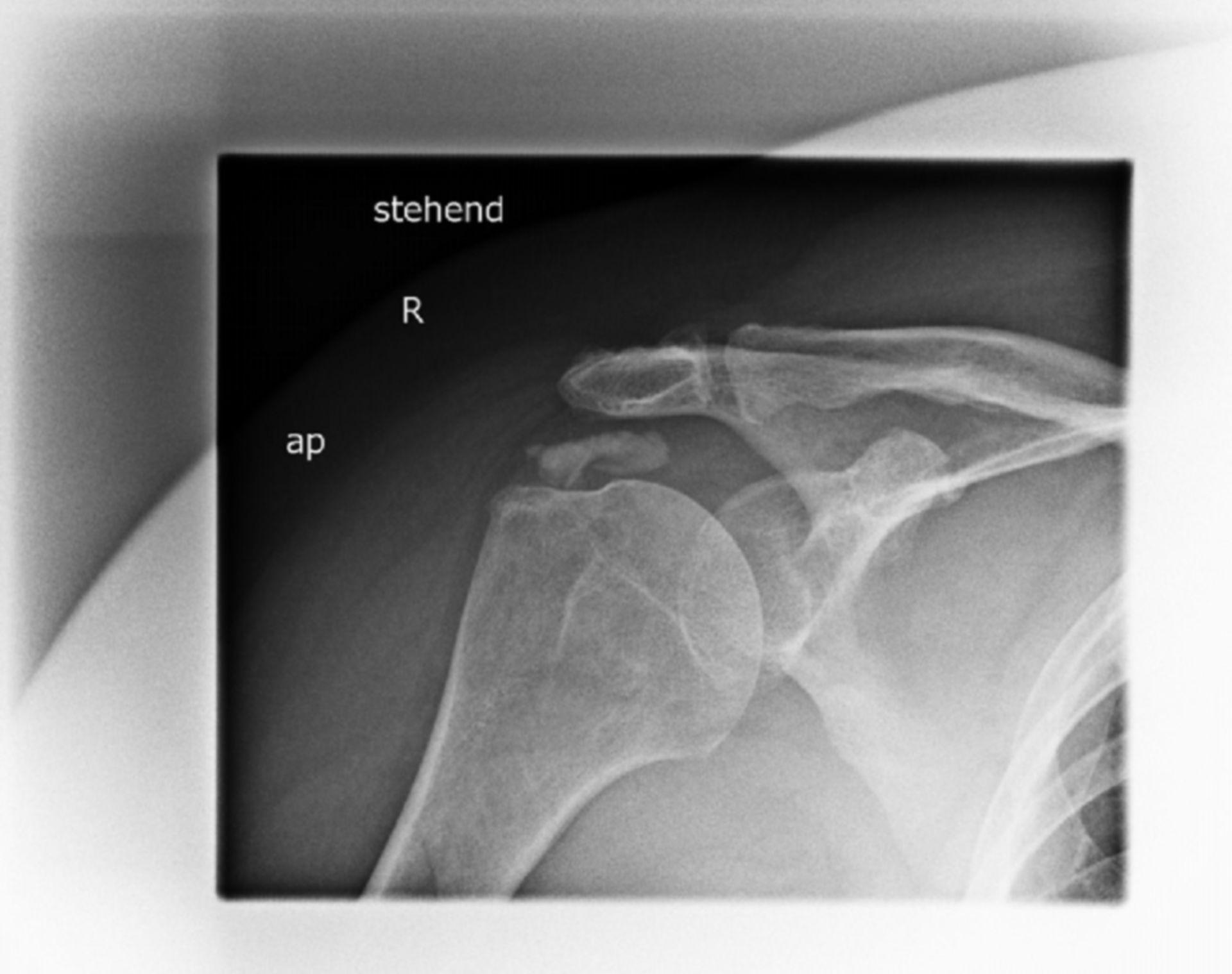rö_ap: Röntgen einer rechten Schulter von a.p. im Stehen