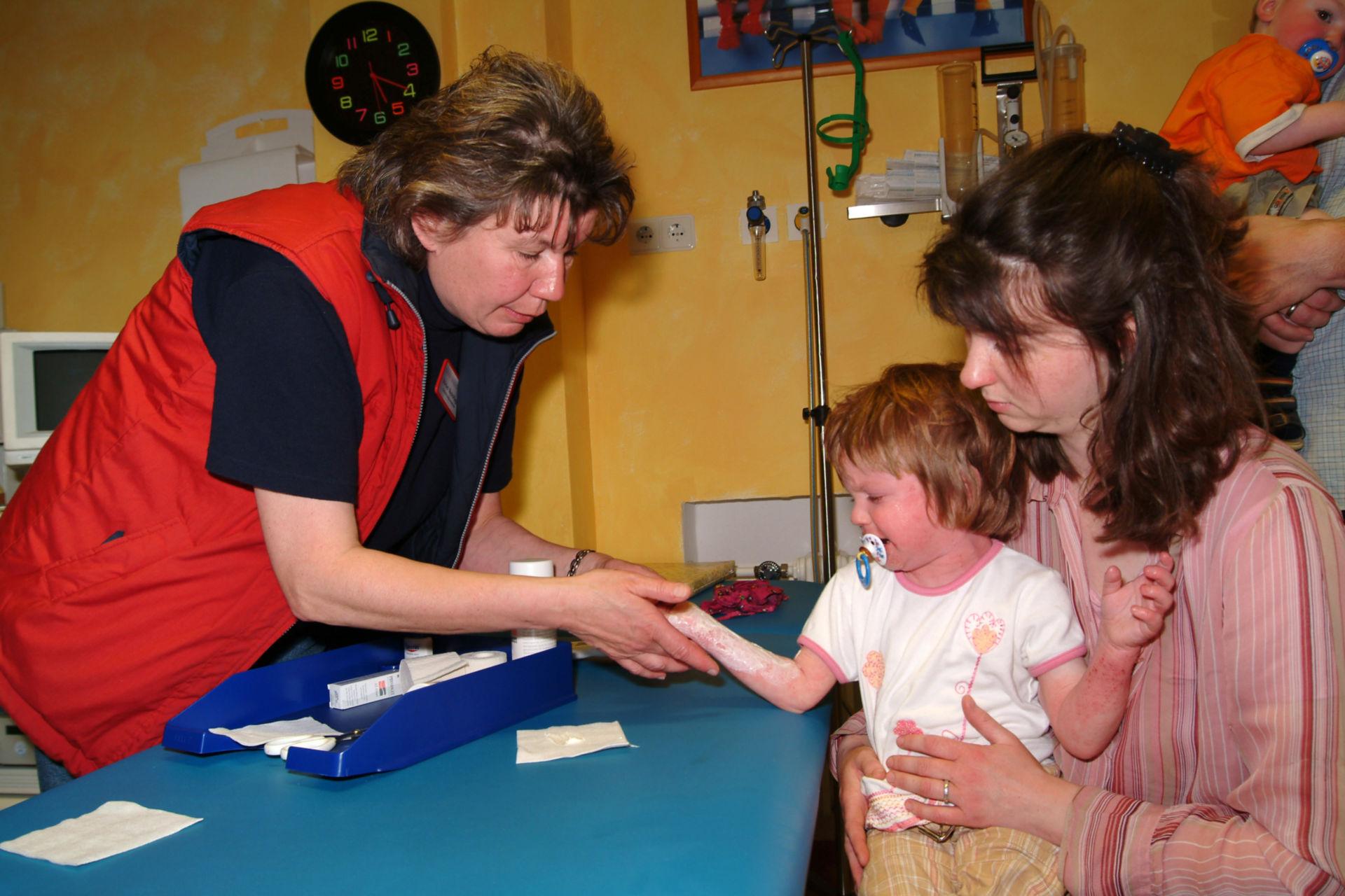 Neurodermitis Kind (2)