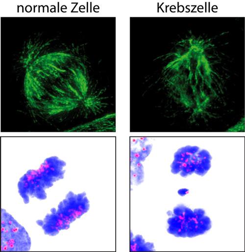 1427_Krebszelle_block