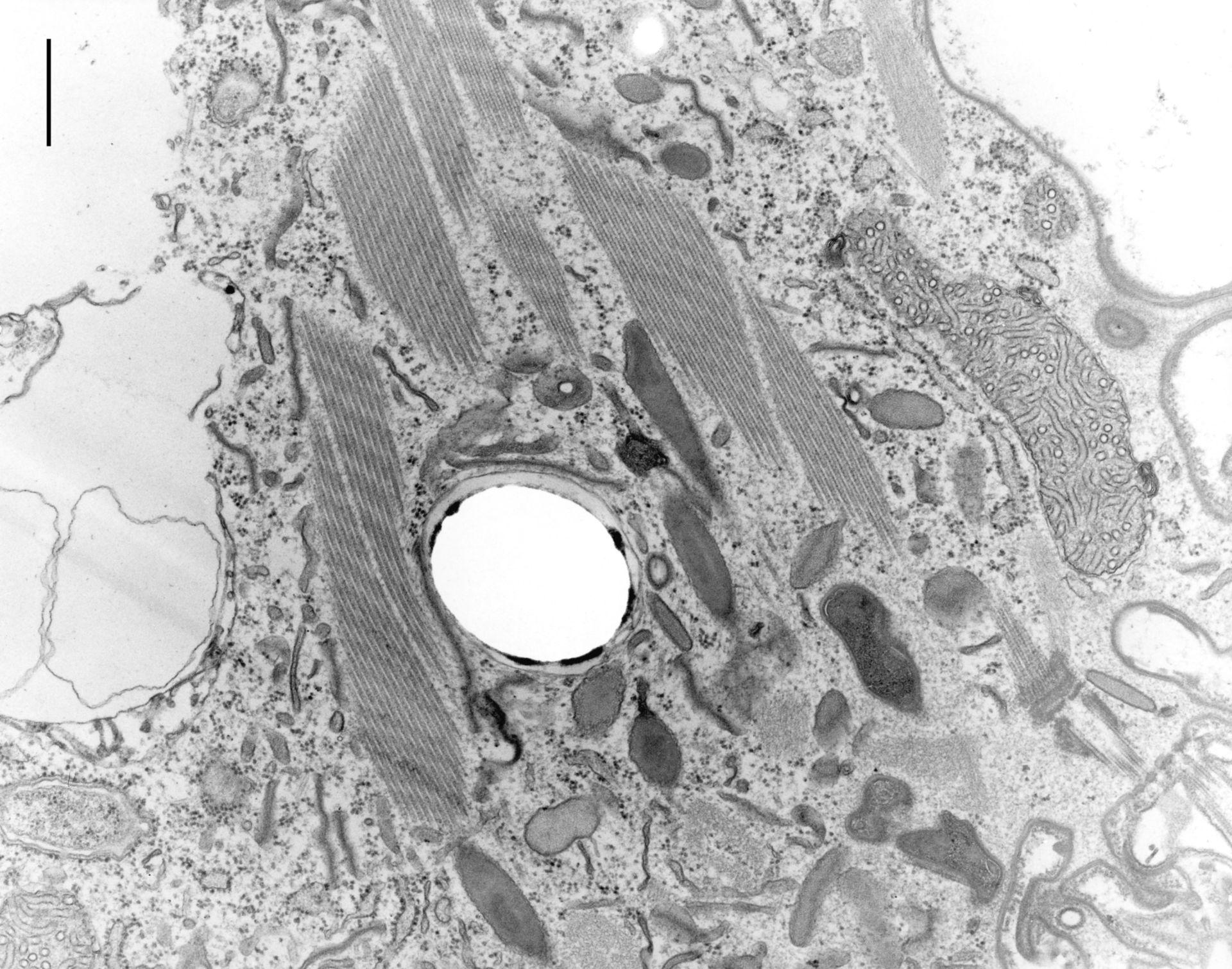 Coleps hirtus (Batteri contenenti simbiosomi) - CIL:9710
