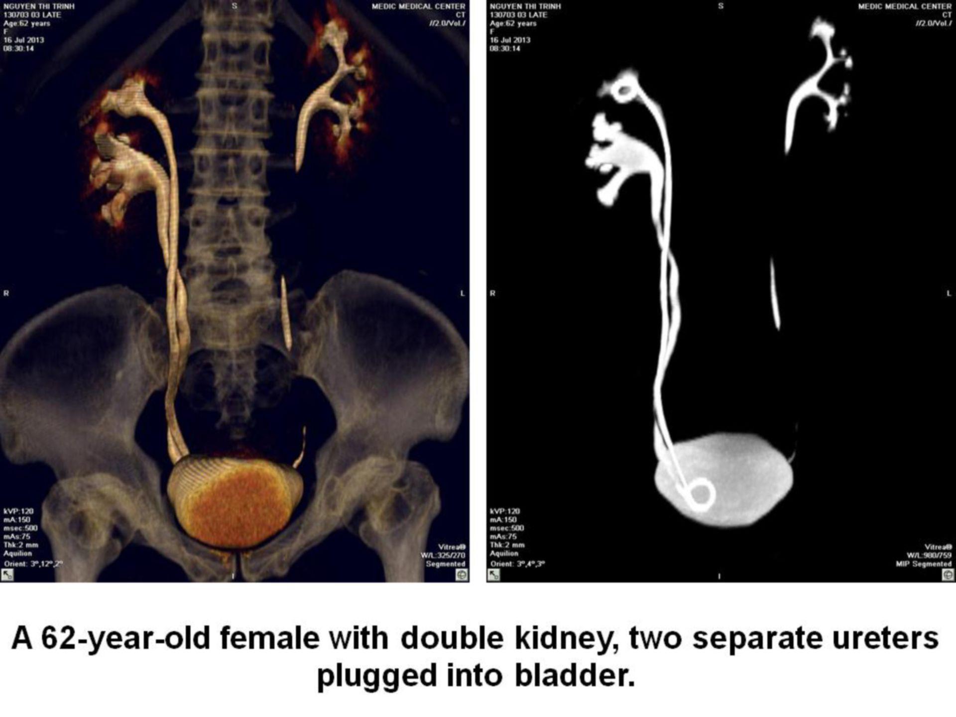 Riñon doble con cálculo en el uréter