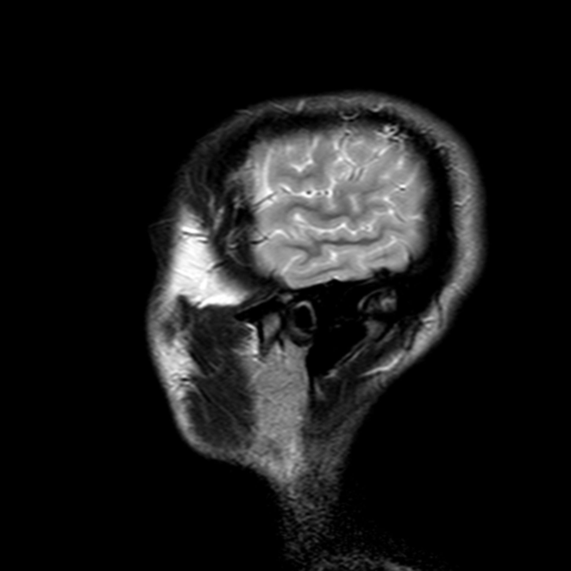 (30/34) MRT Schädel in Sagittalebene, T₂‐gewichtet