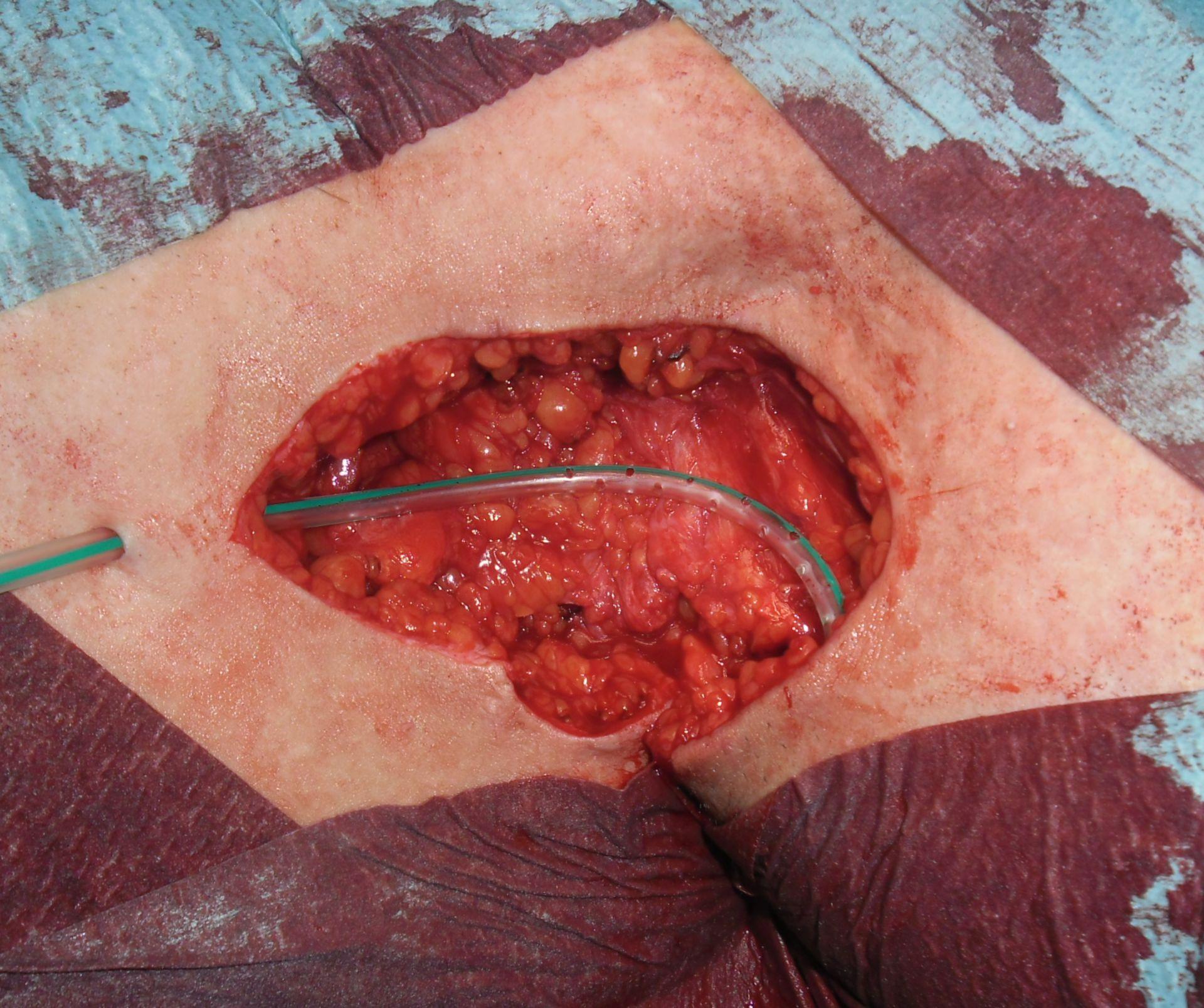 Hidradenitis supurativa - acné inversa