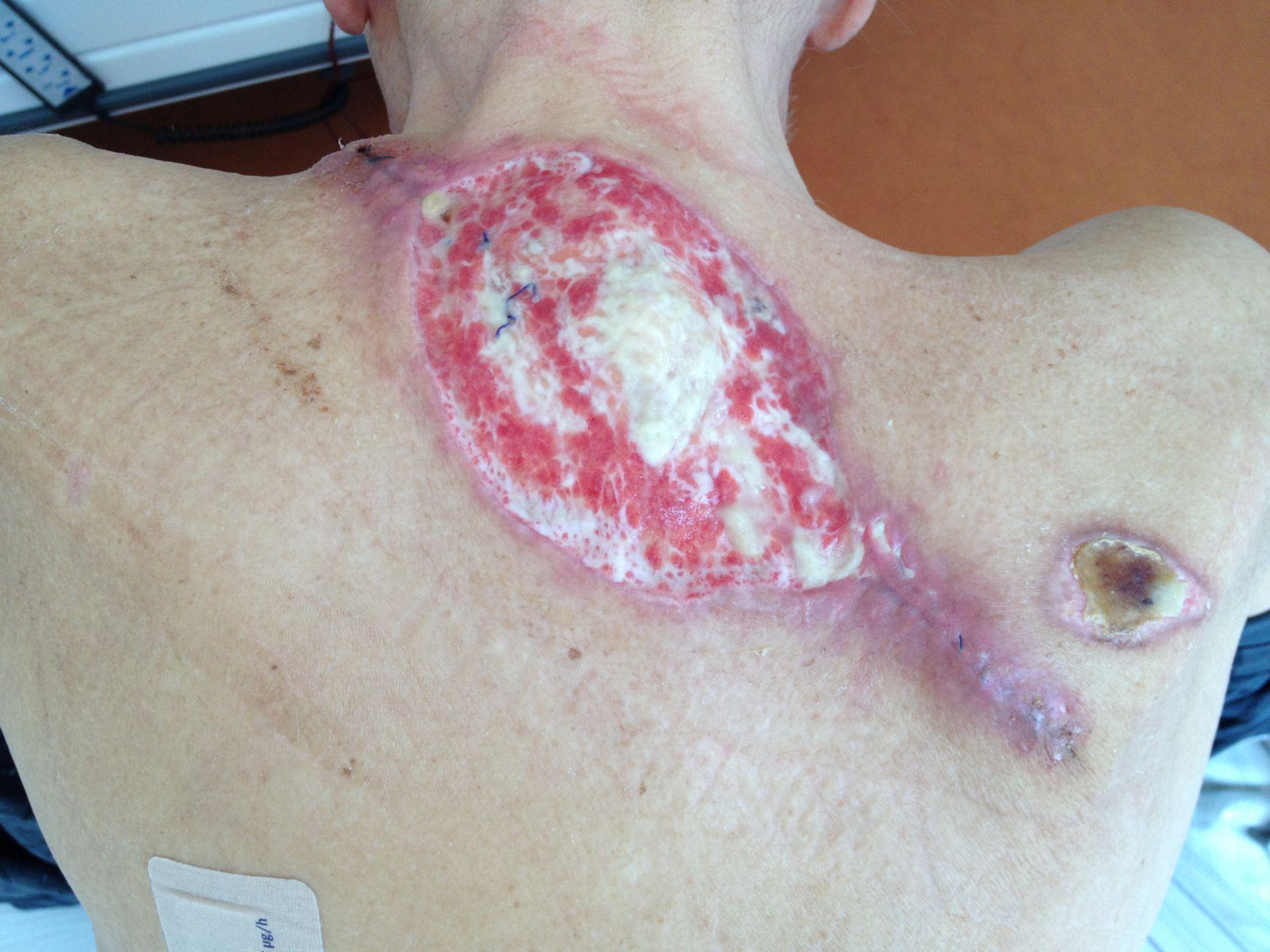 Verbrennung am Heizkörper