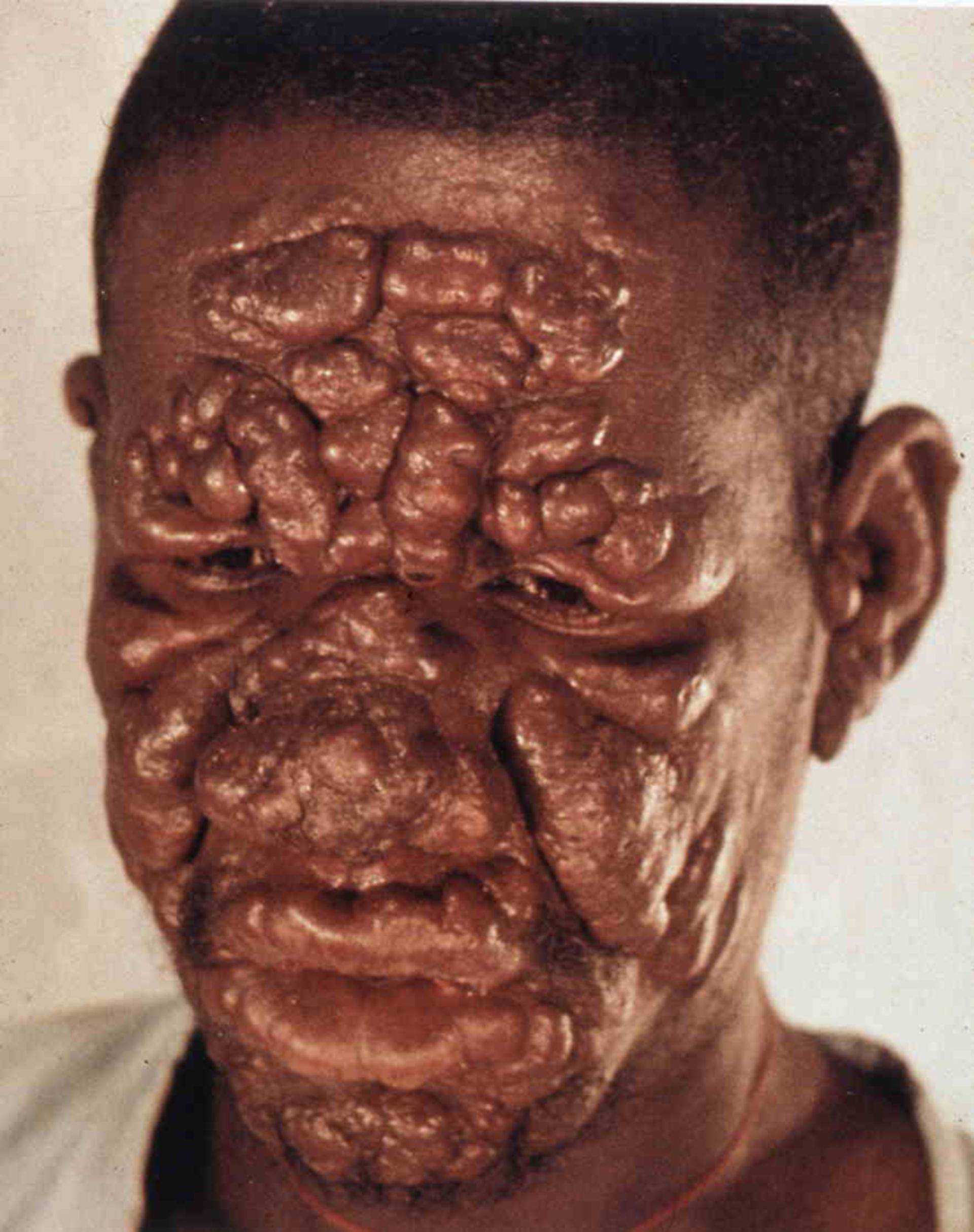 Infección de lepra - aquí: borderline lepra lepromatosa