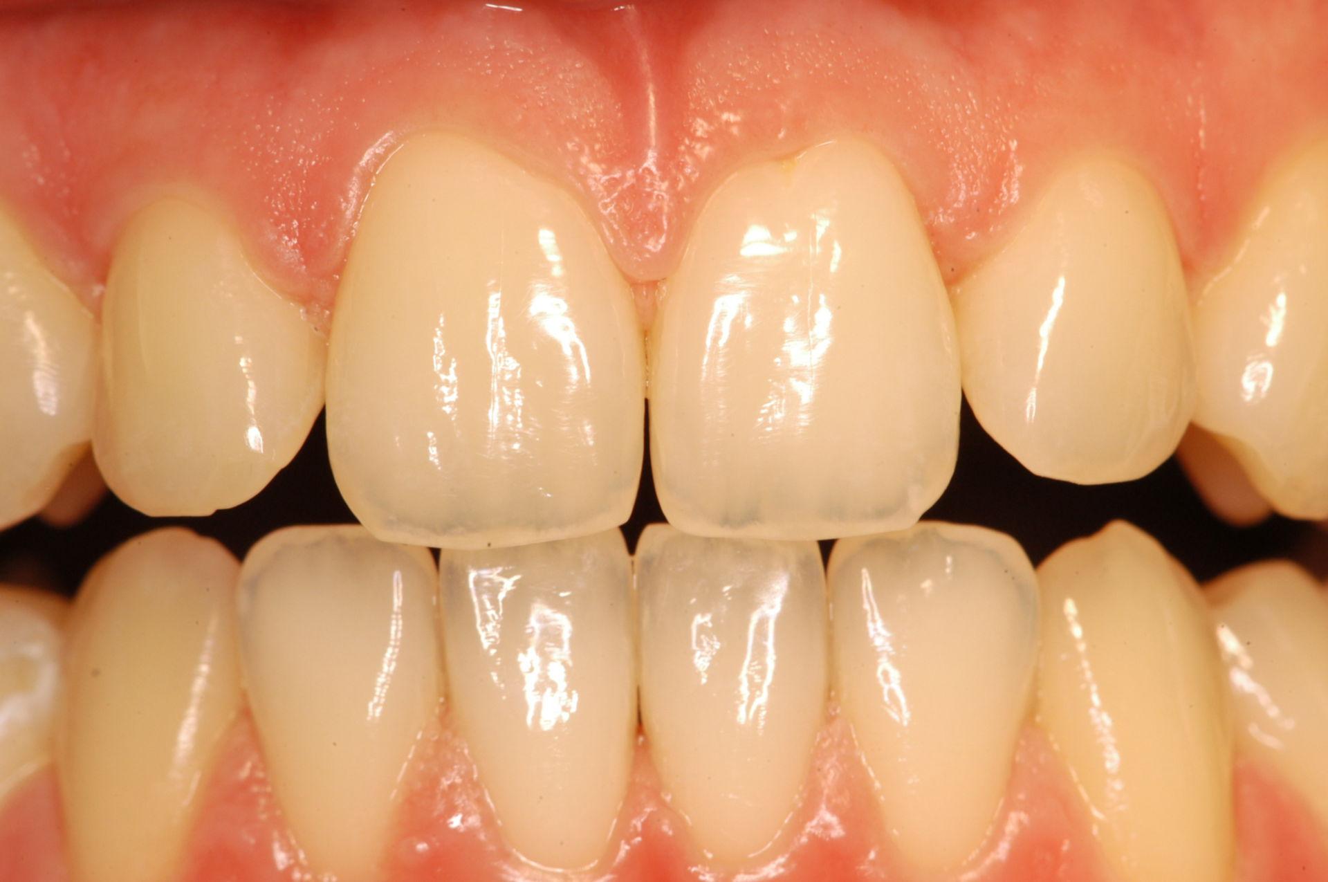 Bella denti sani prima