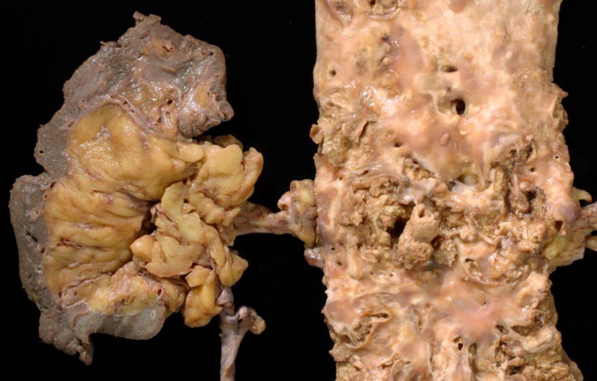 Riñon cirrótico, oclusión de la raíz de la arteria renal