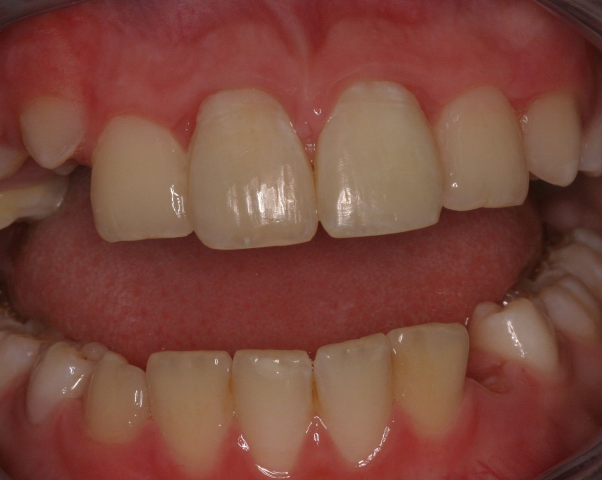 State of the teeth, 6 months after a complex trauma to the frontal teeth