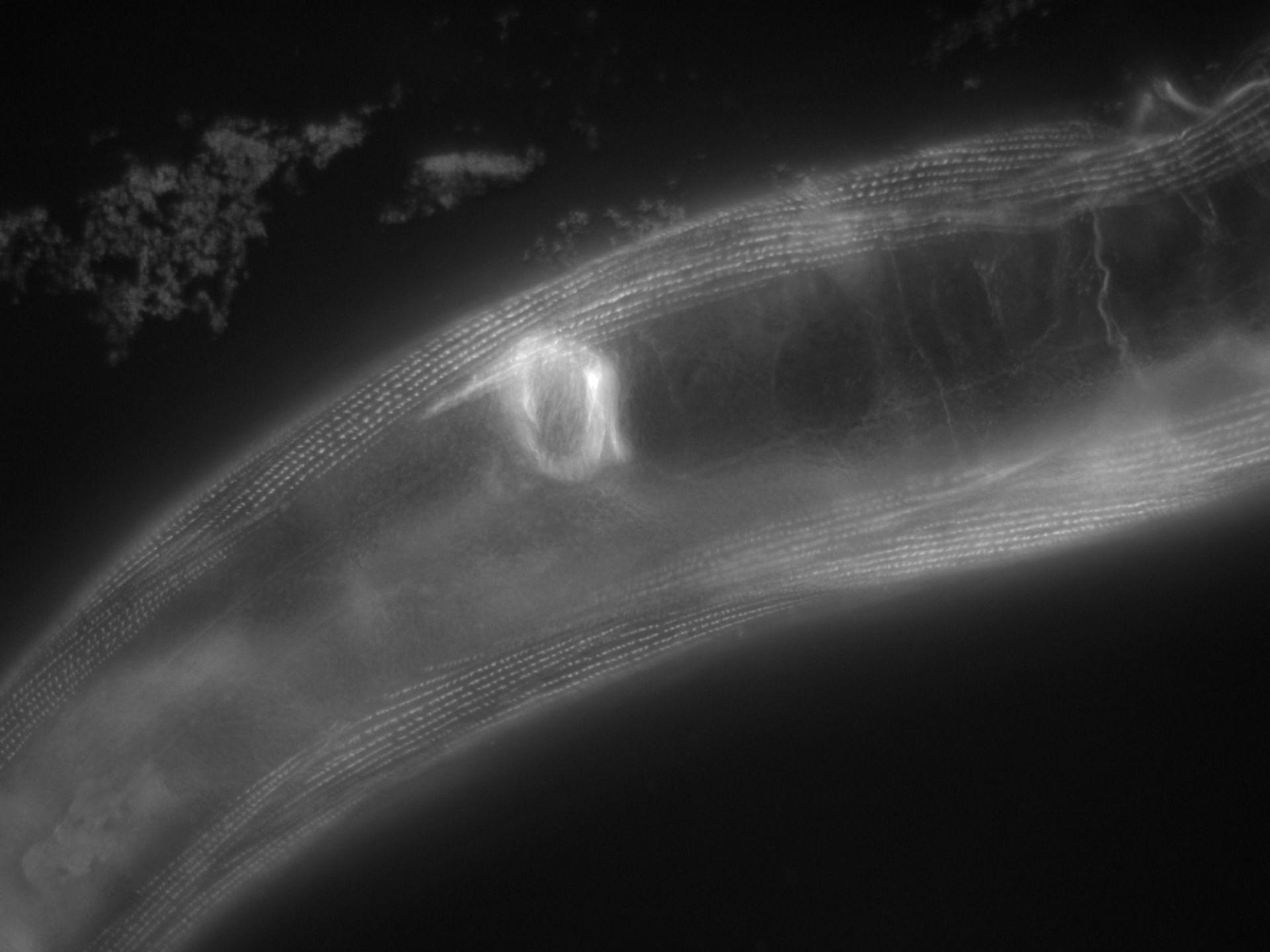 Caenorhabditis elegans (Actin filament) - CIL:1160