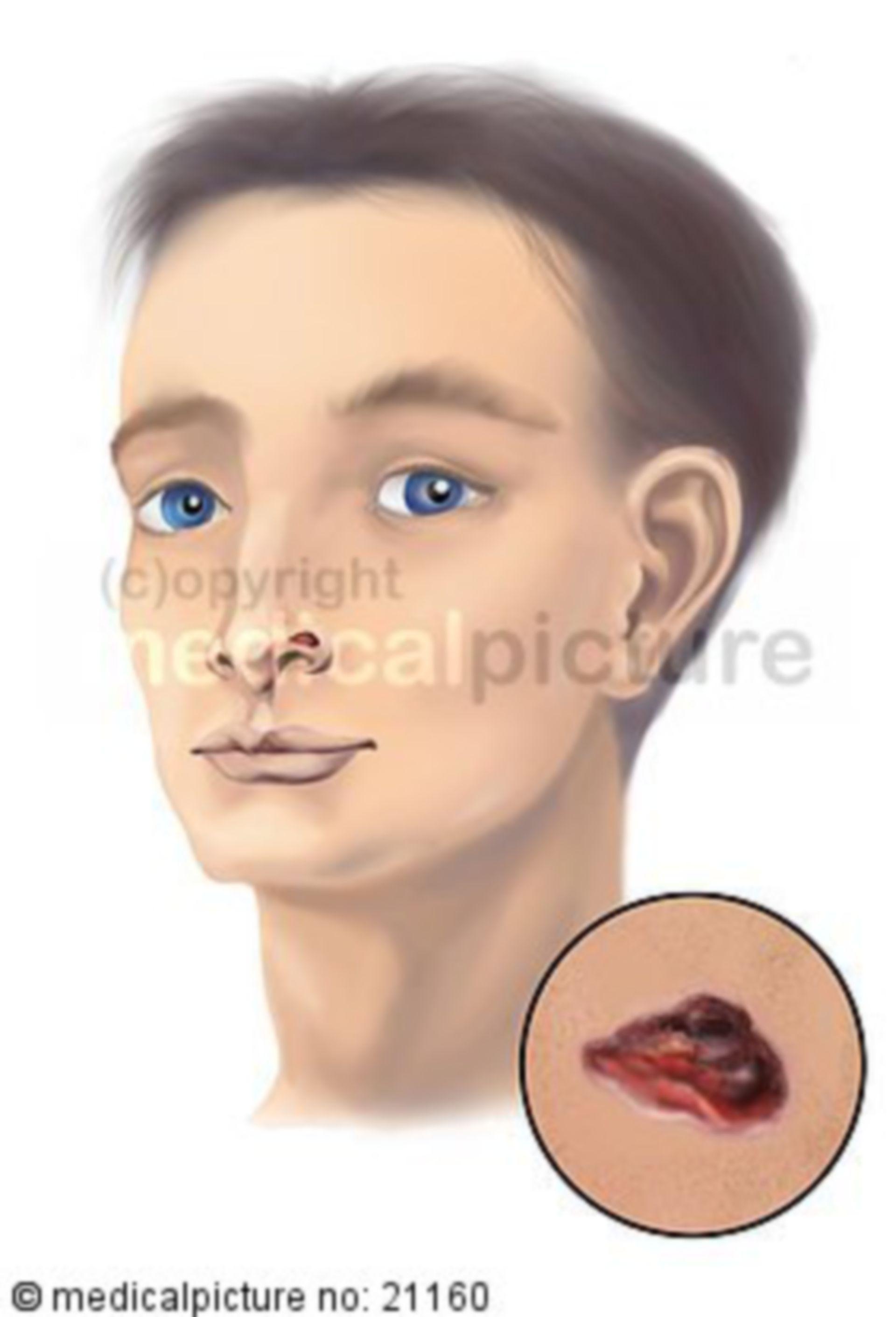 Pelle, carcinoma a cellule basali