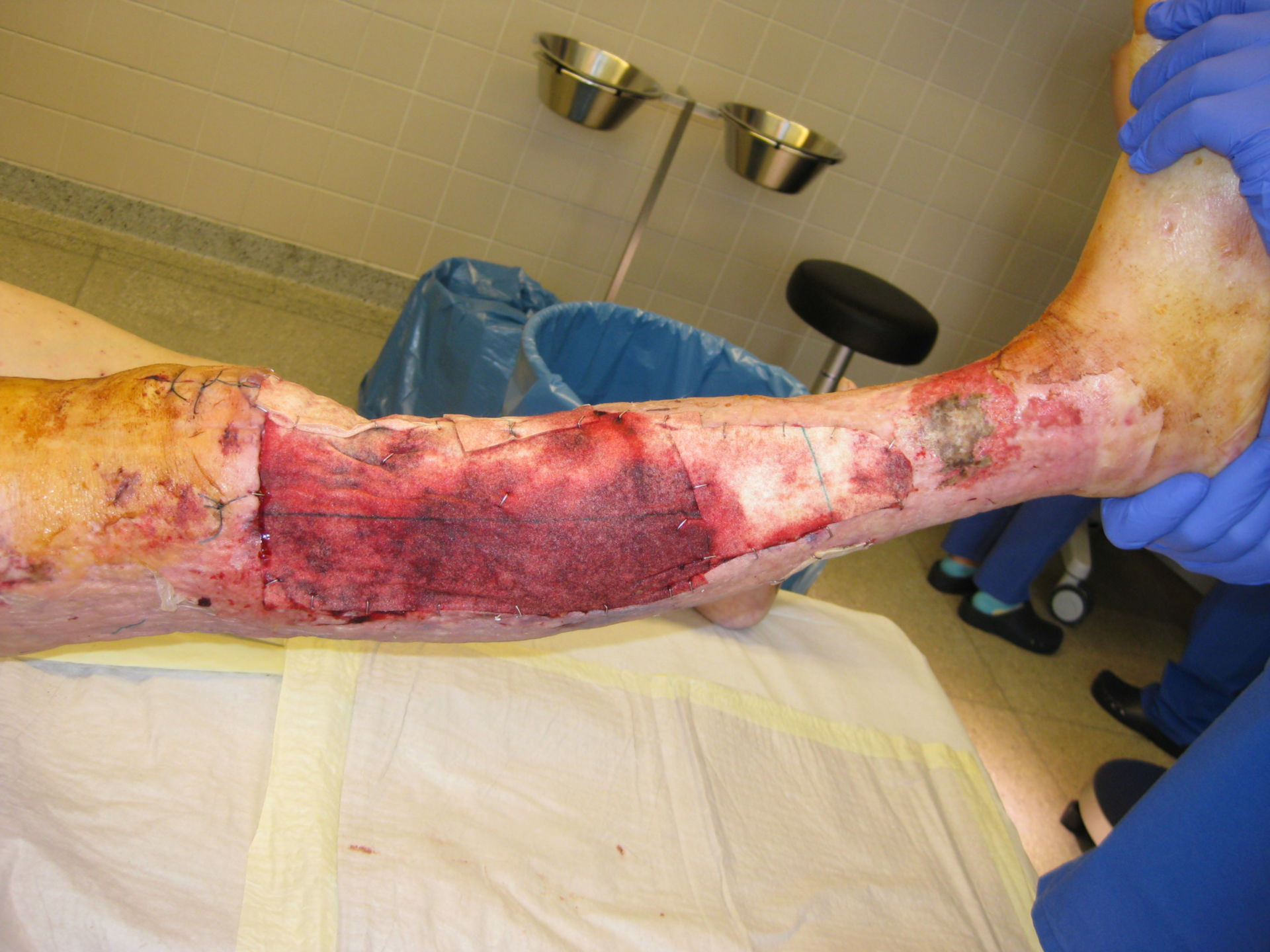 Gangrenous pyoderma, right leg