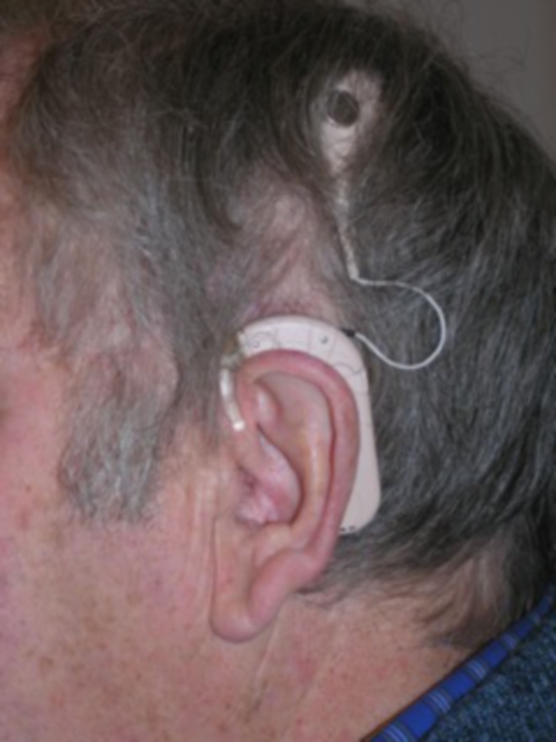 Cochlear implant (left)